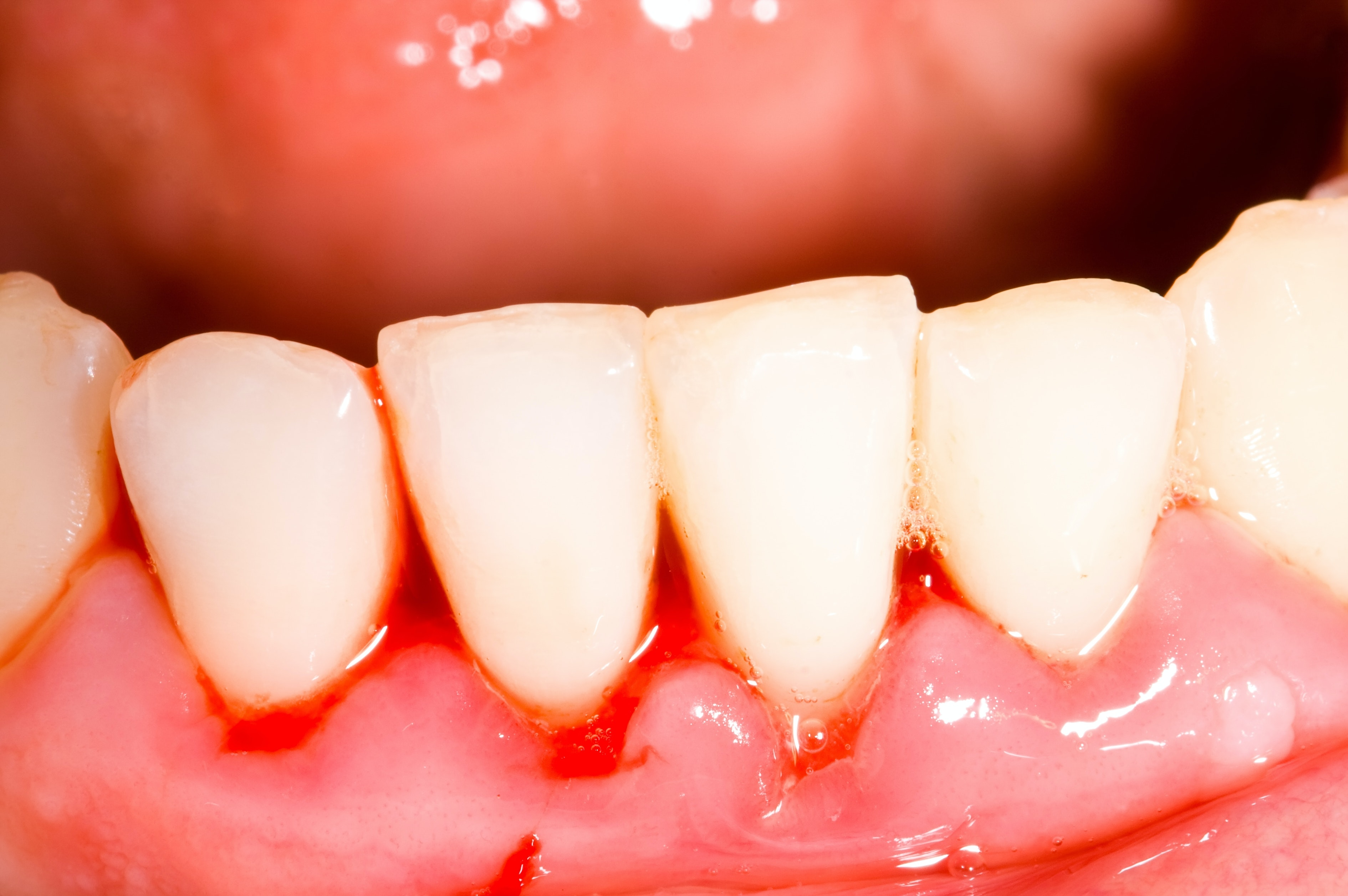 An image depicting a person suffering from gingivitis symptoms