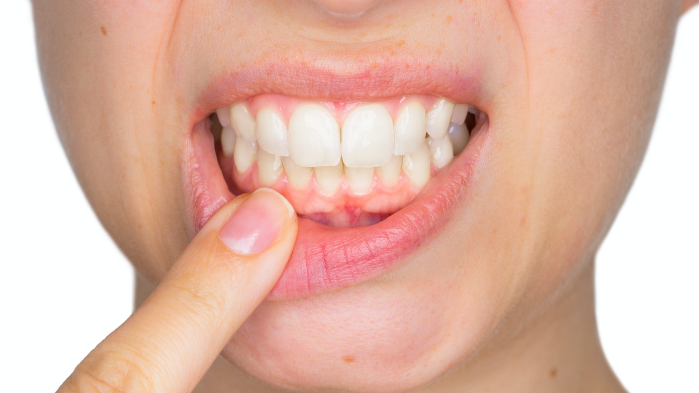 Gum Pain | Reasons Why Your Gums Hurt & How To Find Gum Pain