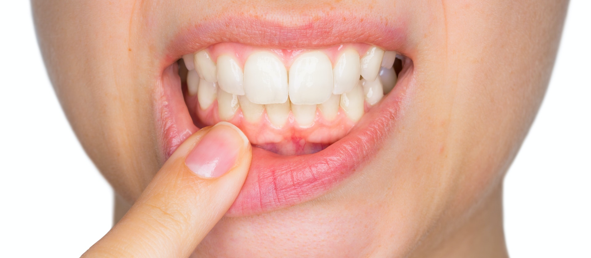 Proper diagnosis of tooth sensitivity is important for proper treatment