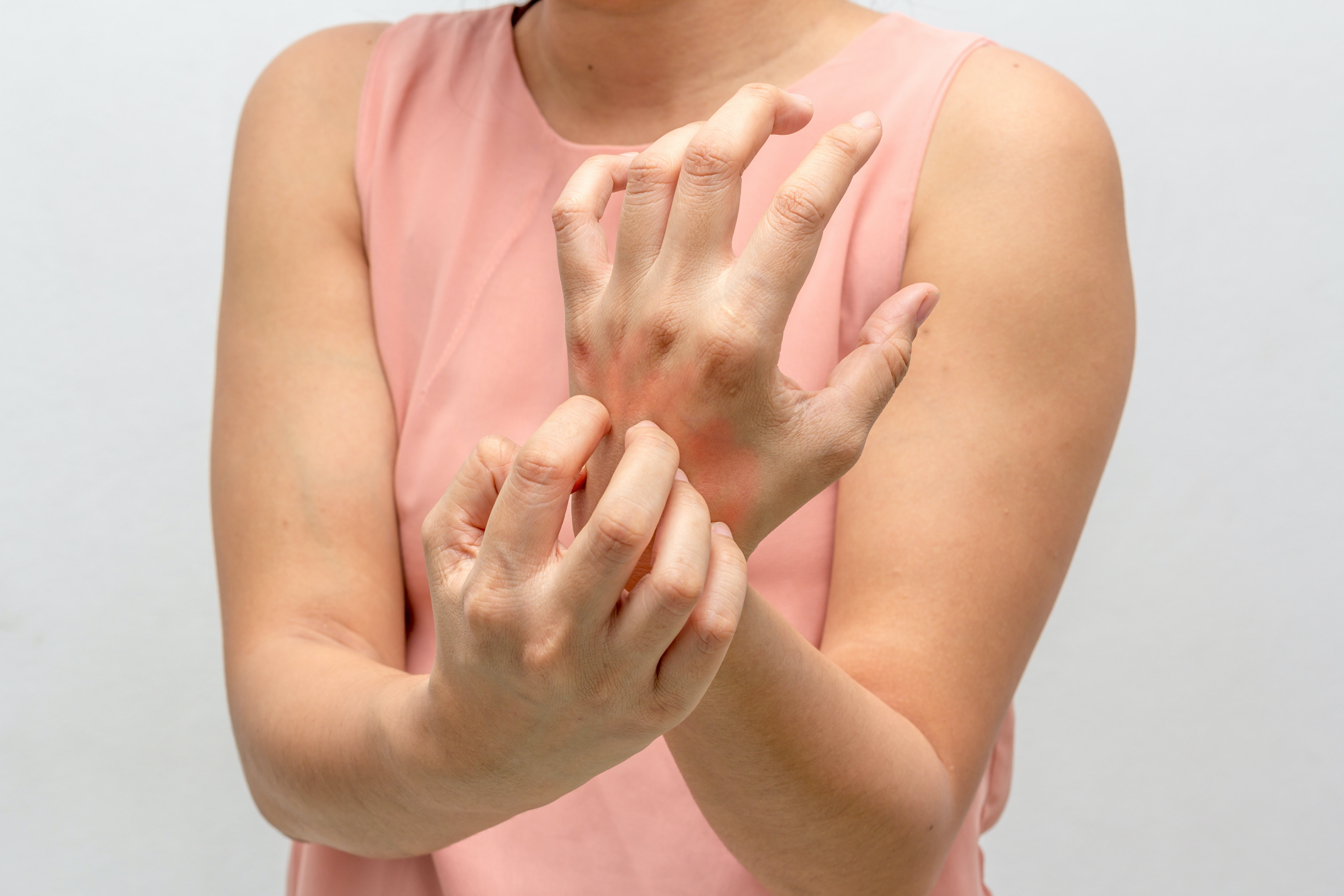 An image depicting a person suffering from hand itch symptoms