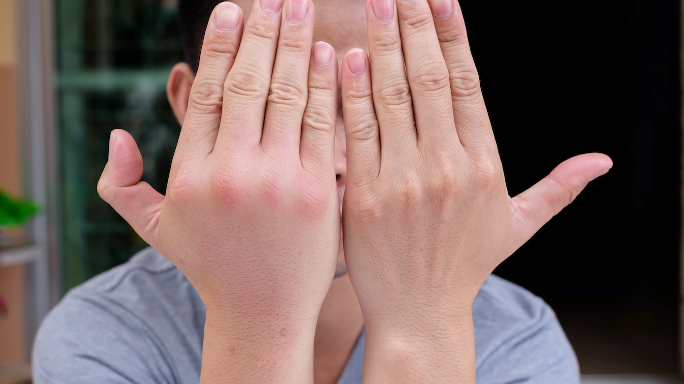 Hand Swelling | 9 Reasons for Hand and Finger Swelling | Buoy