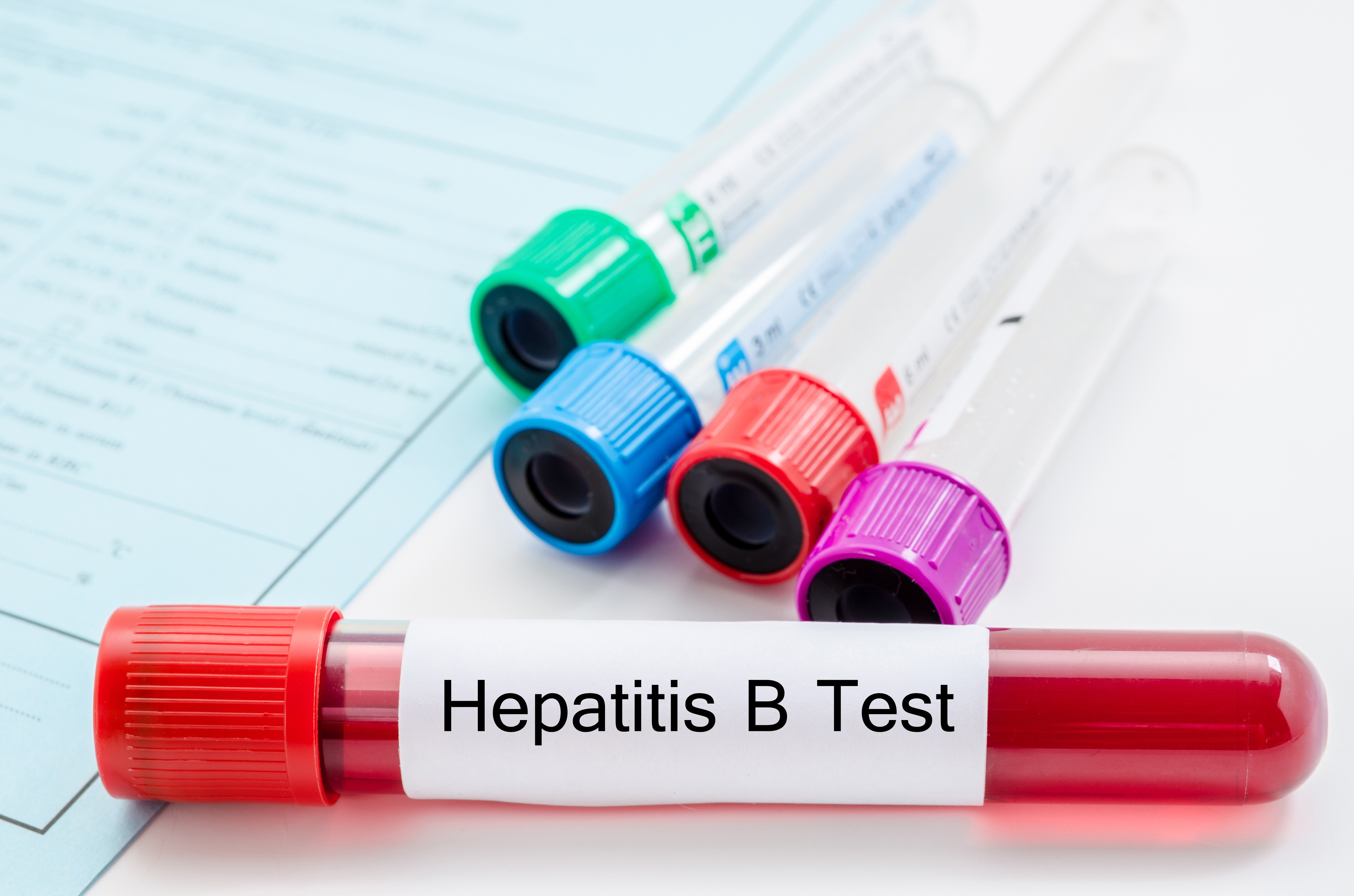 An image depicting a person suffering from hepatitis b symptoms