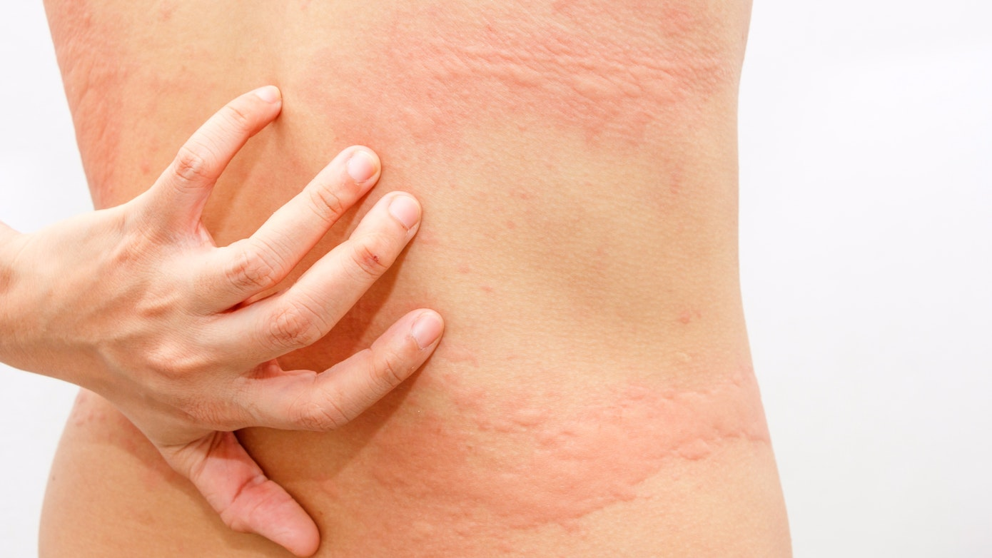Hives Symptoms, Causes & Treatment Options | Buoy