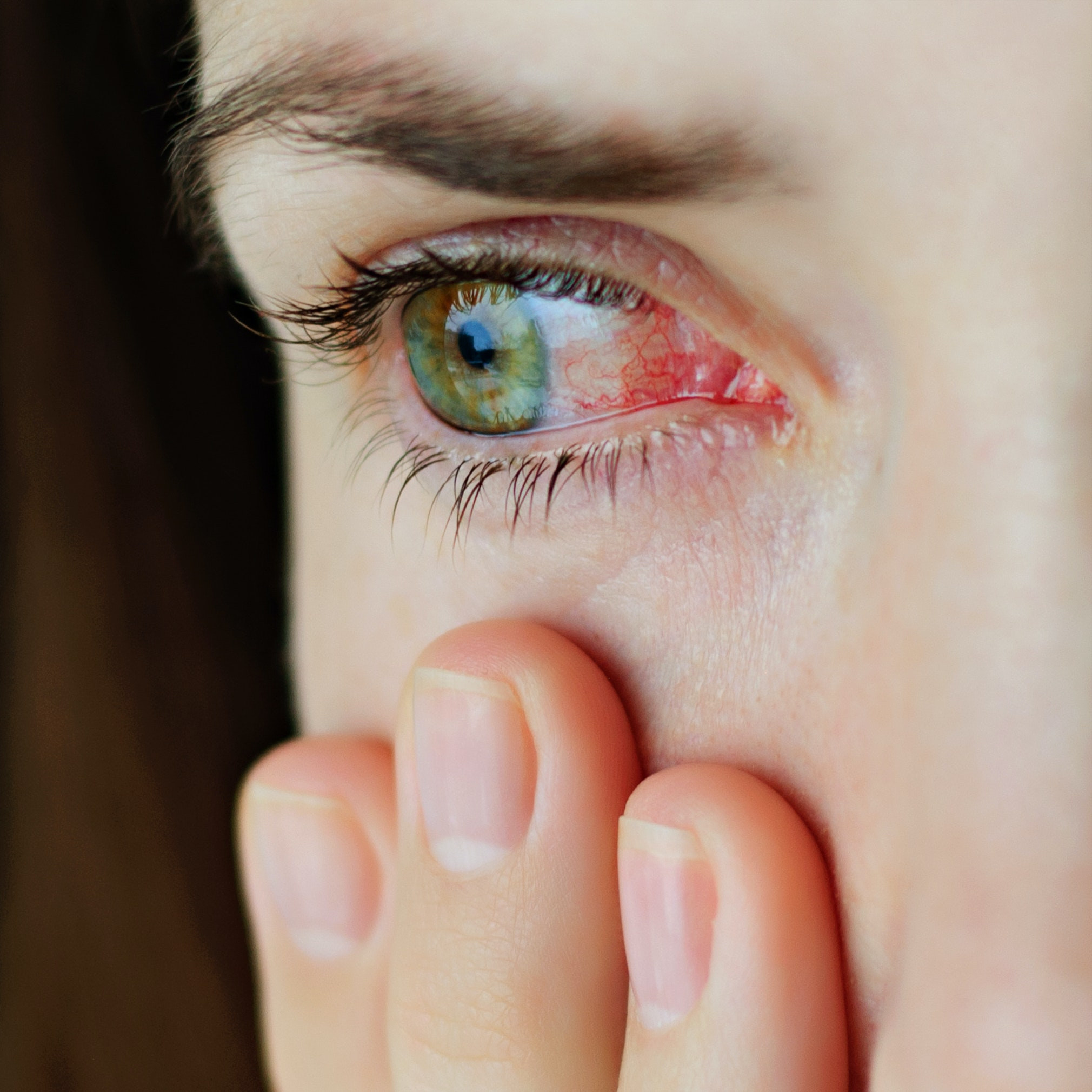 An image depicting a person suffering from itch in one eye symptoms