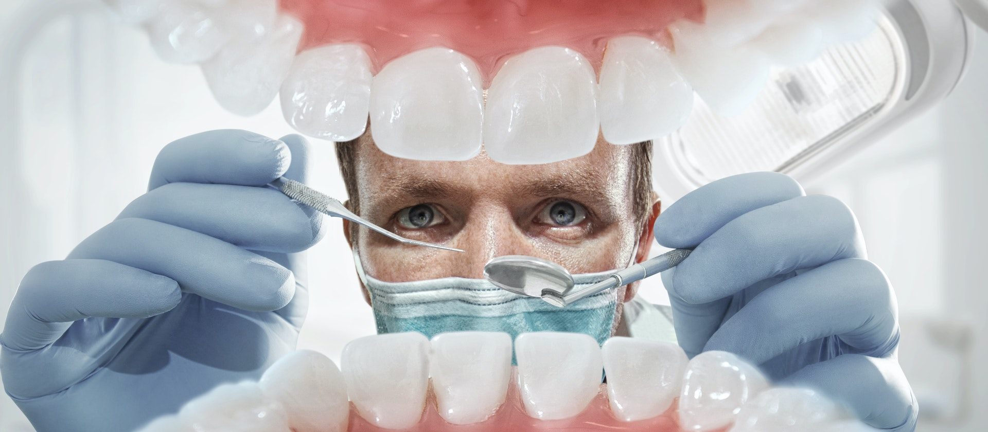 Lesions On The Roof Of The Mouth Symptom Causes Questions Buoy