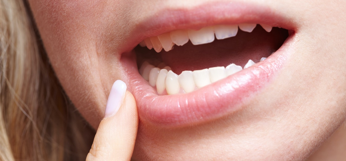 8 Causes for Lip Numbness & How to Treat Tingling Lips | Buoy