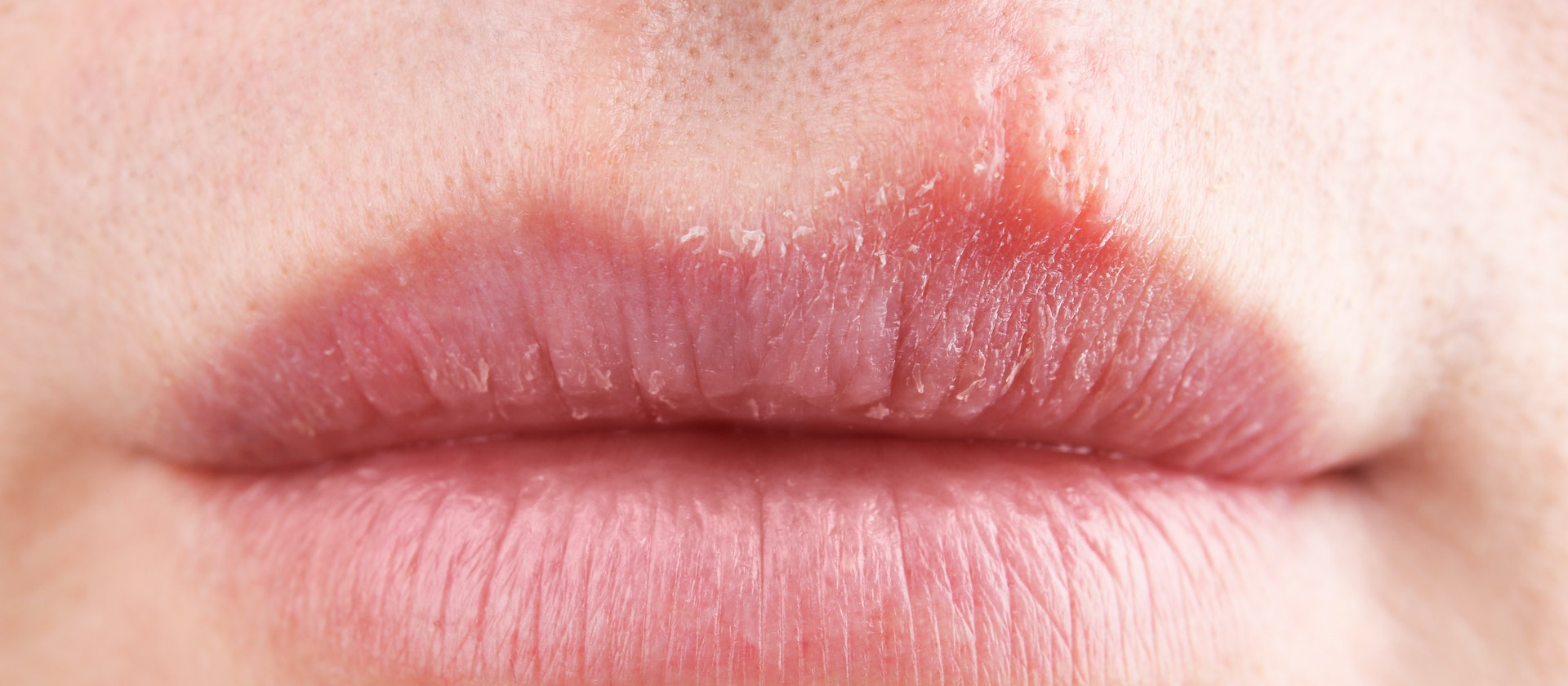 Lip Rash Symptoms Causes Treatment Options Buoy