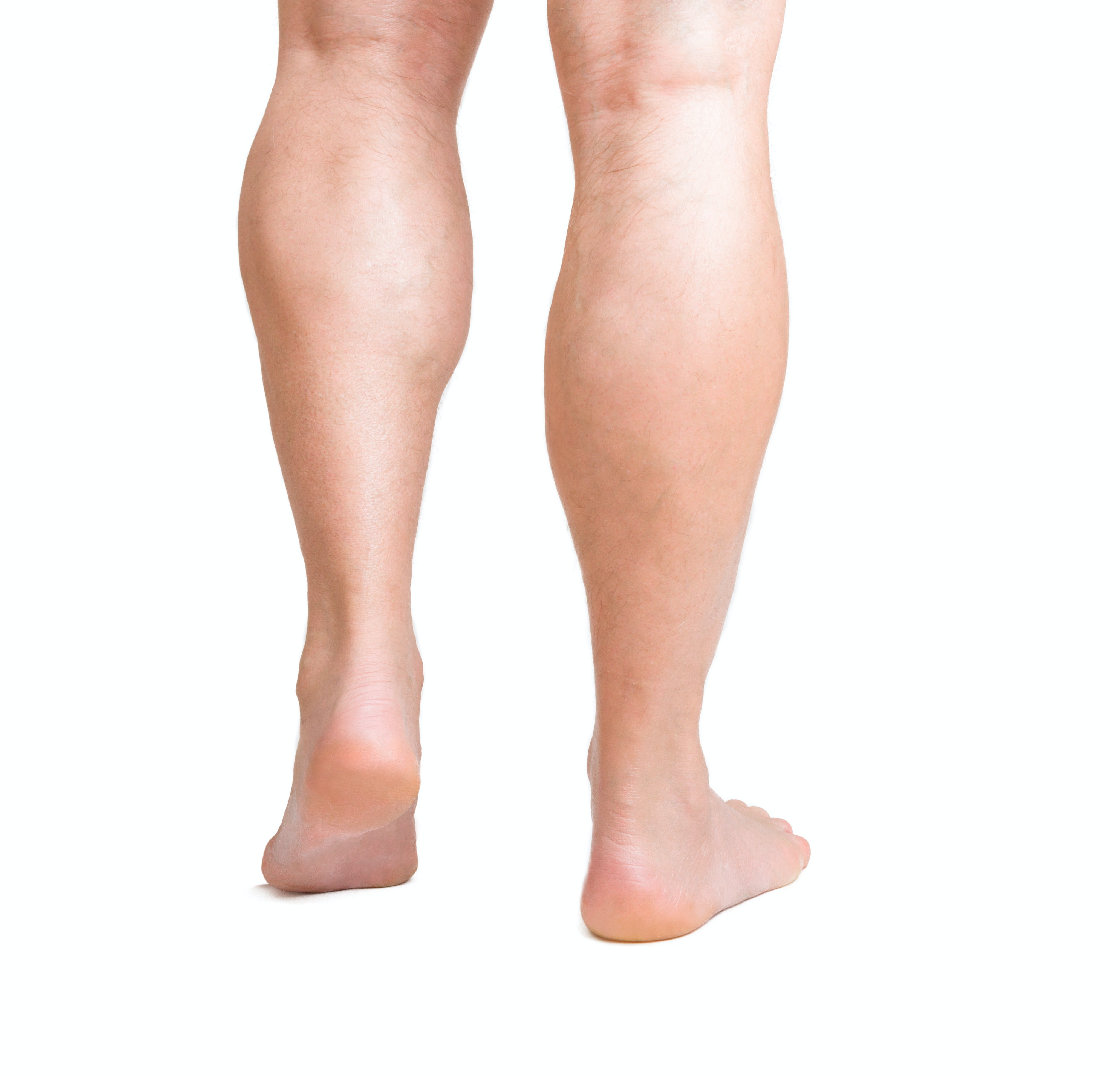 An image depicting a person suffering from lower leg bump symptoms