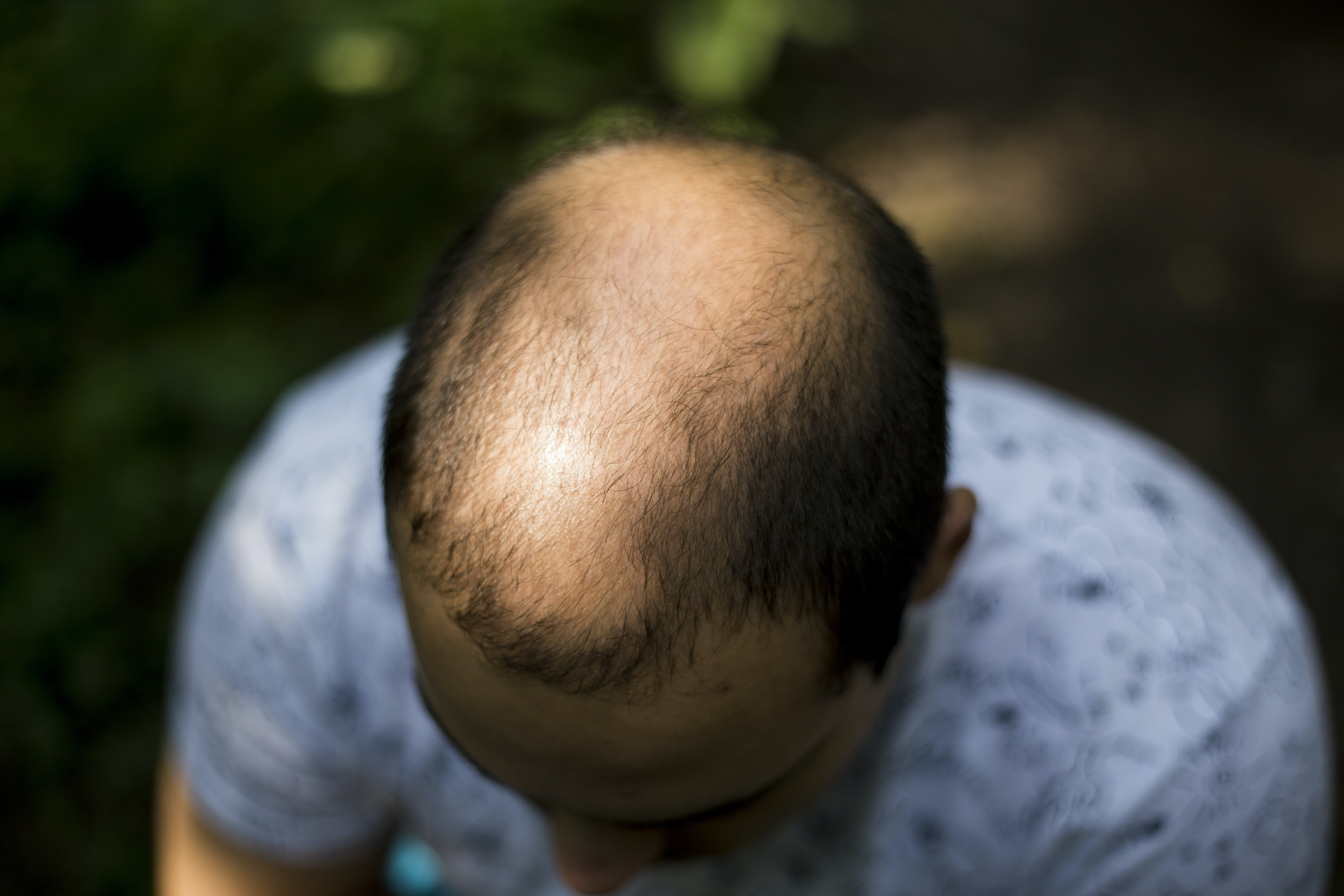An image depicting a person suffering from male pattern baldness symptoms