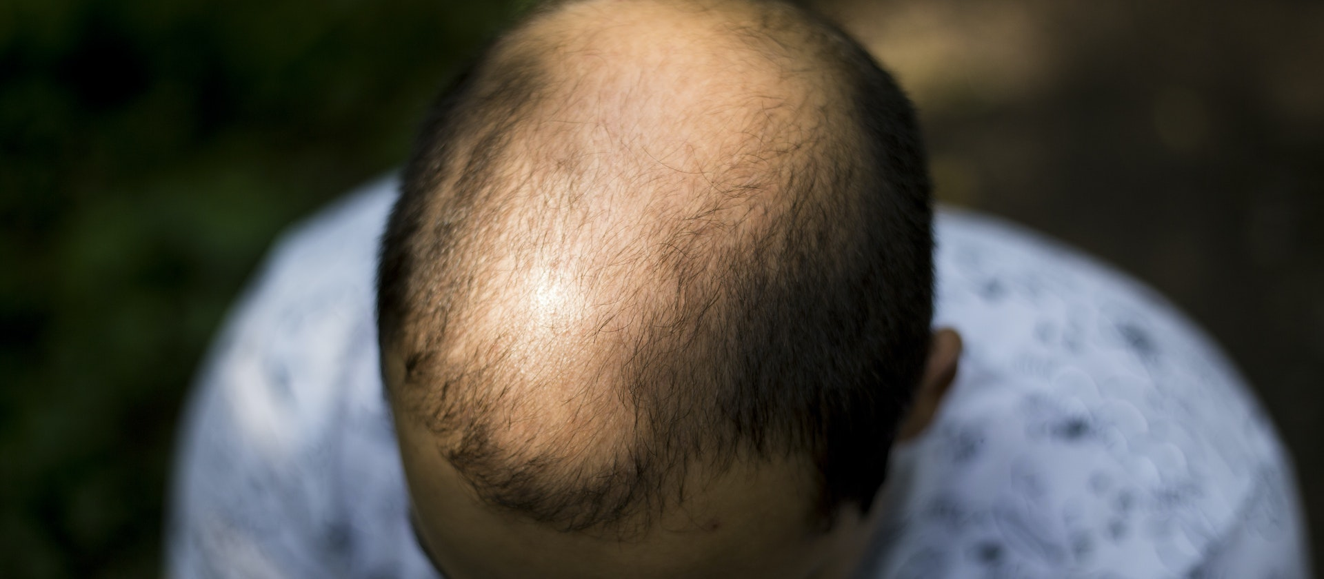What Is Male Pattern Baldness Unique Inspiration