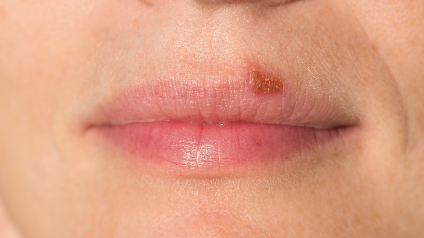 Mouth Sore Resembling Oral Herpes Symptom, Causes