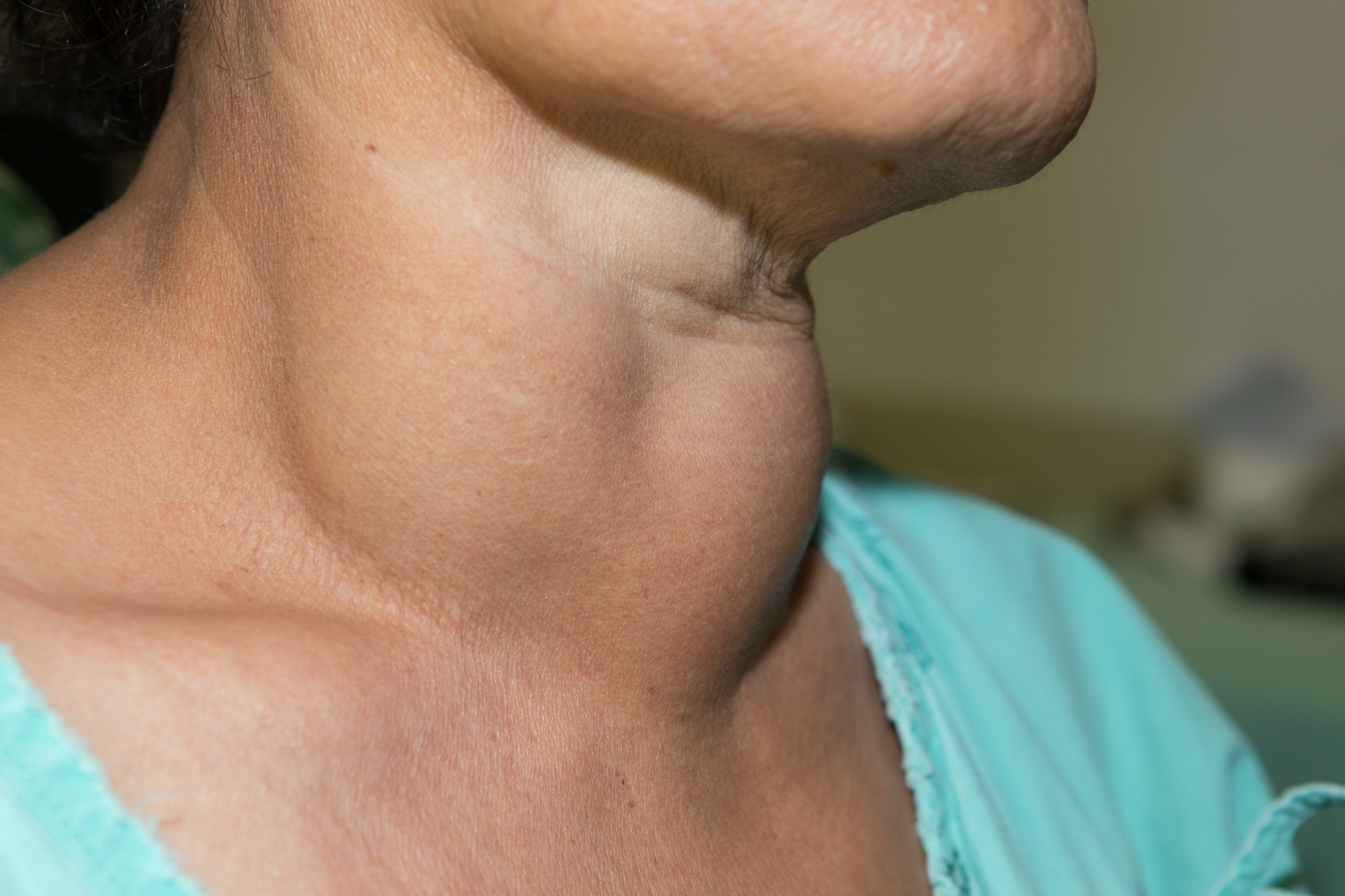 An image depicting a person suffering from neck lump symptoms