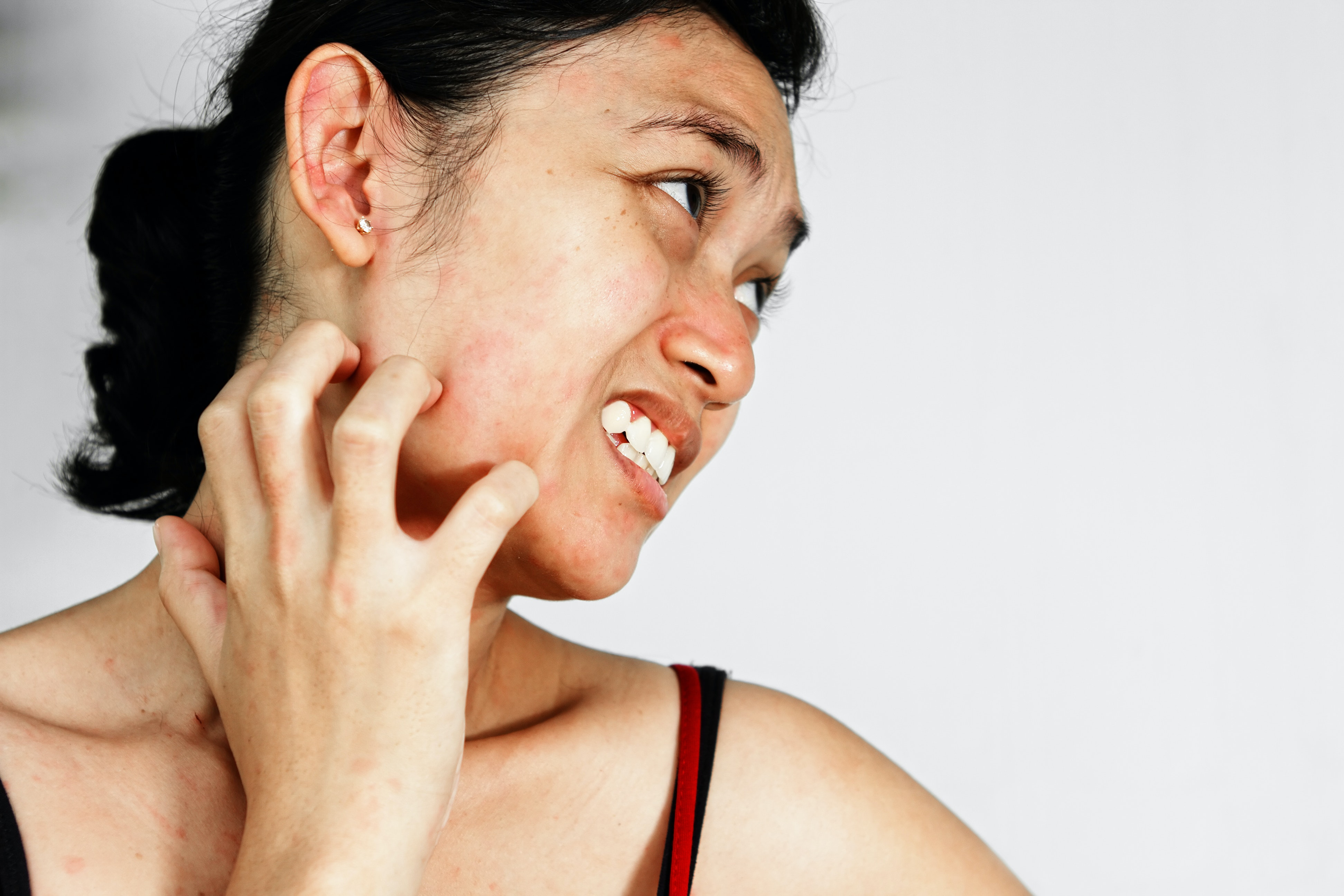 Signs: why cheeks and ears burn