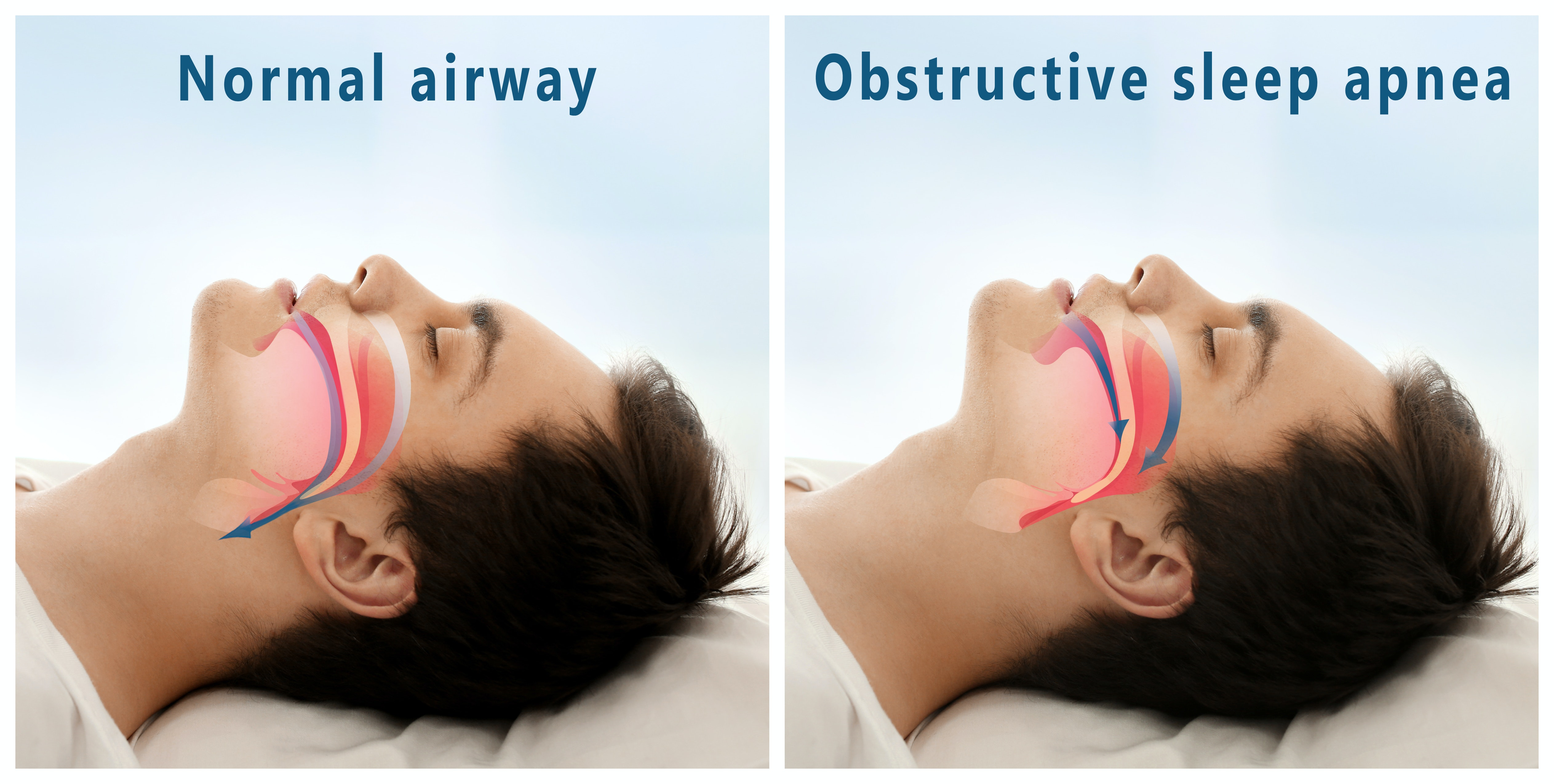 An image depicting a person suffering from obstructive sleep apnea symptoms