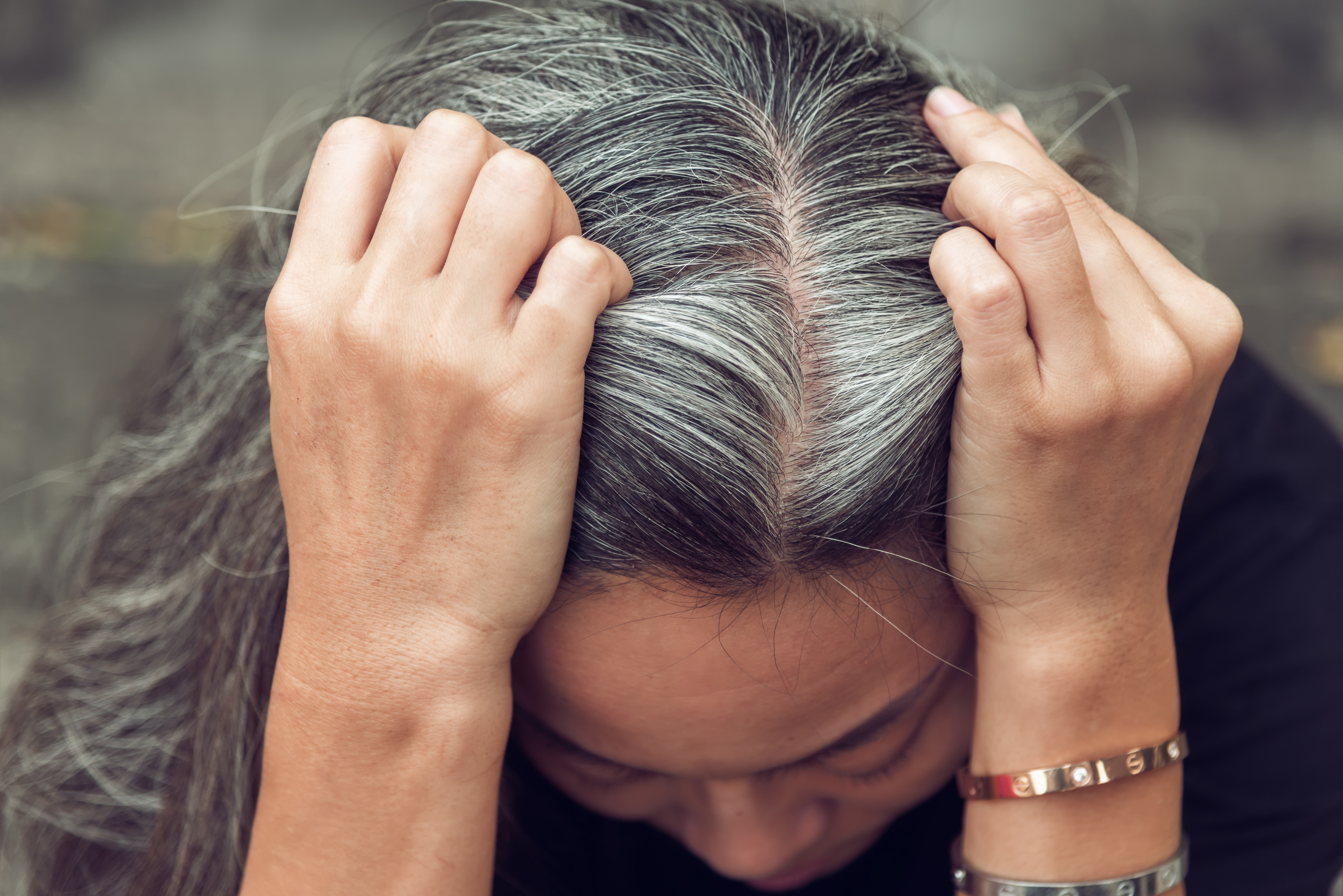 Painful Scalp Pimples & Bumps | Reasons for Painful Bumps on