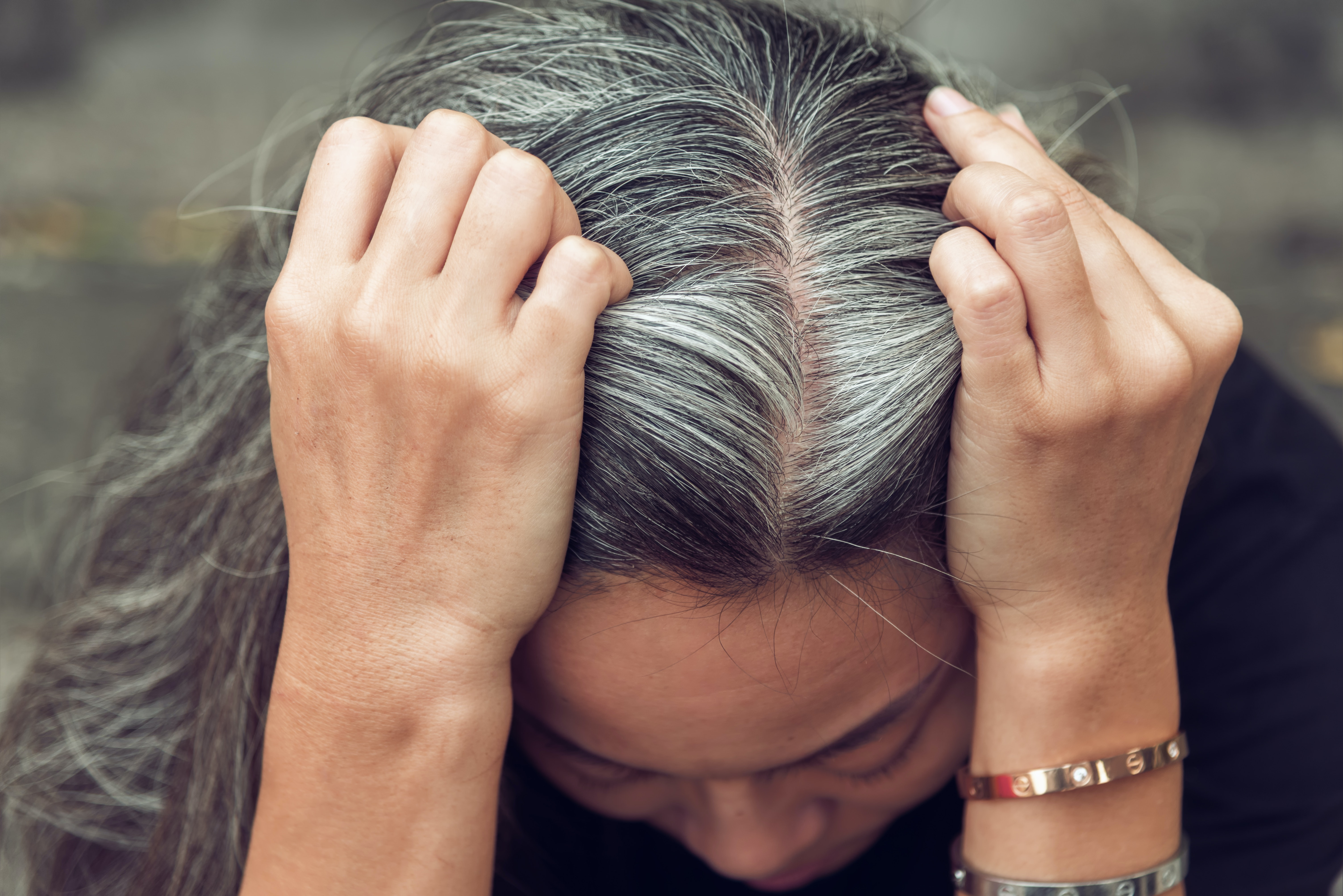 An image depicting a person suffering from painful scalp bump symptoms