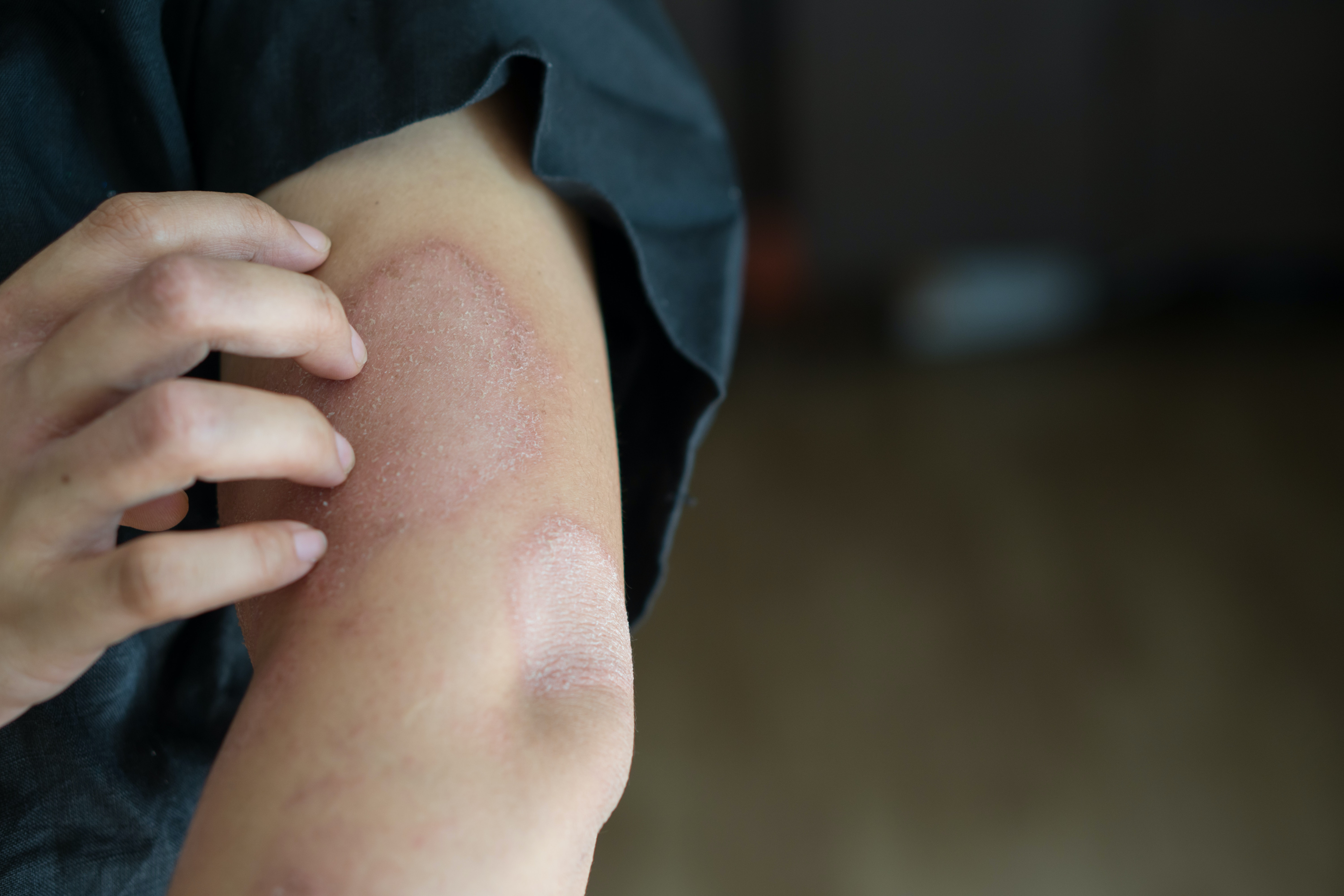 An image depicting a person suffering from painless arm bump symptoms