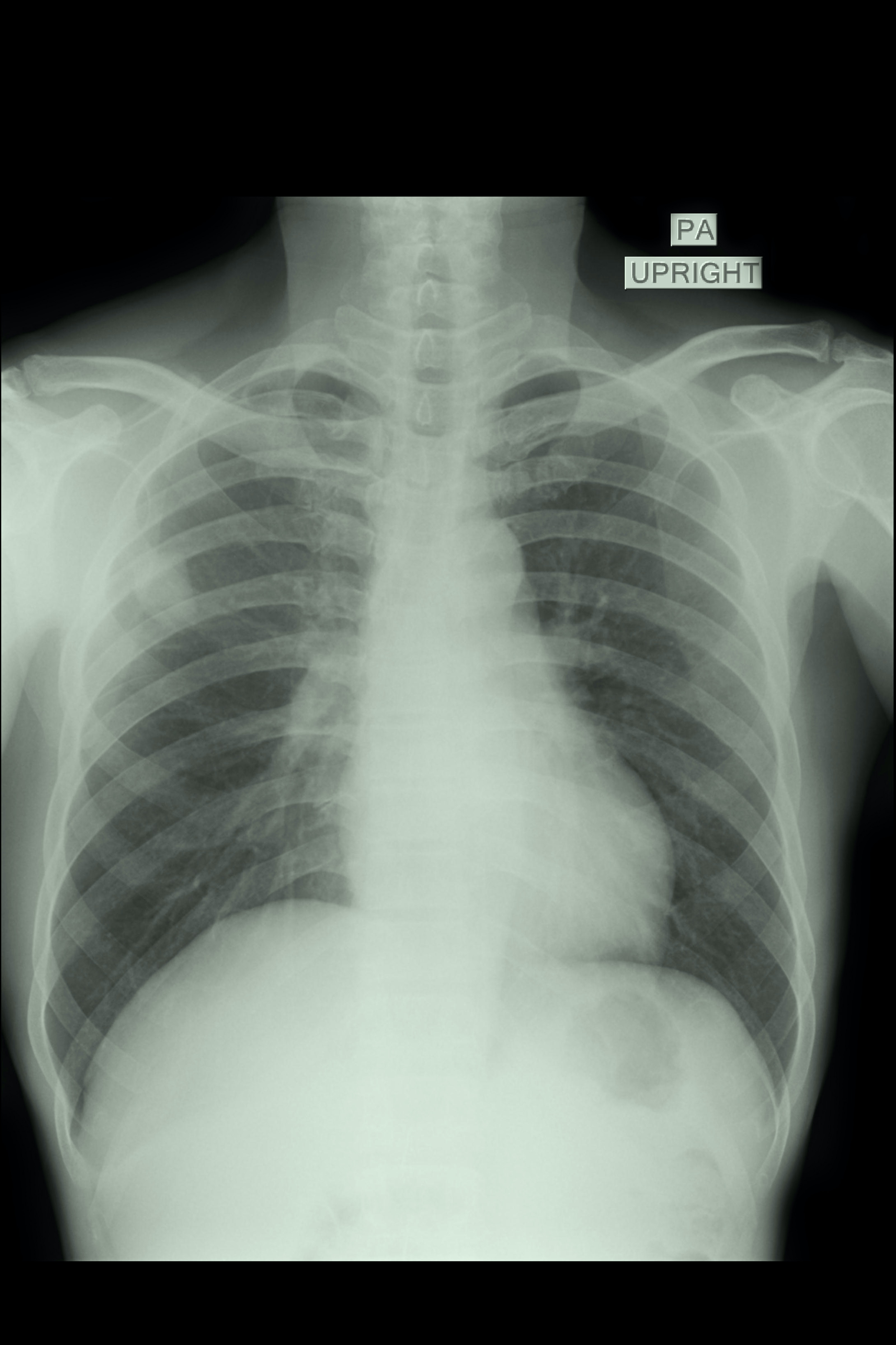 An image depicting a person suffering from painless chest wall lump symptoms