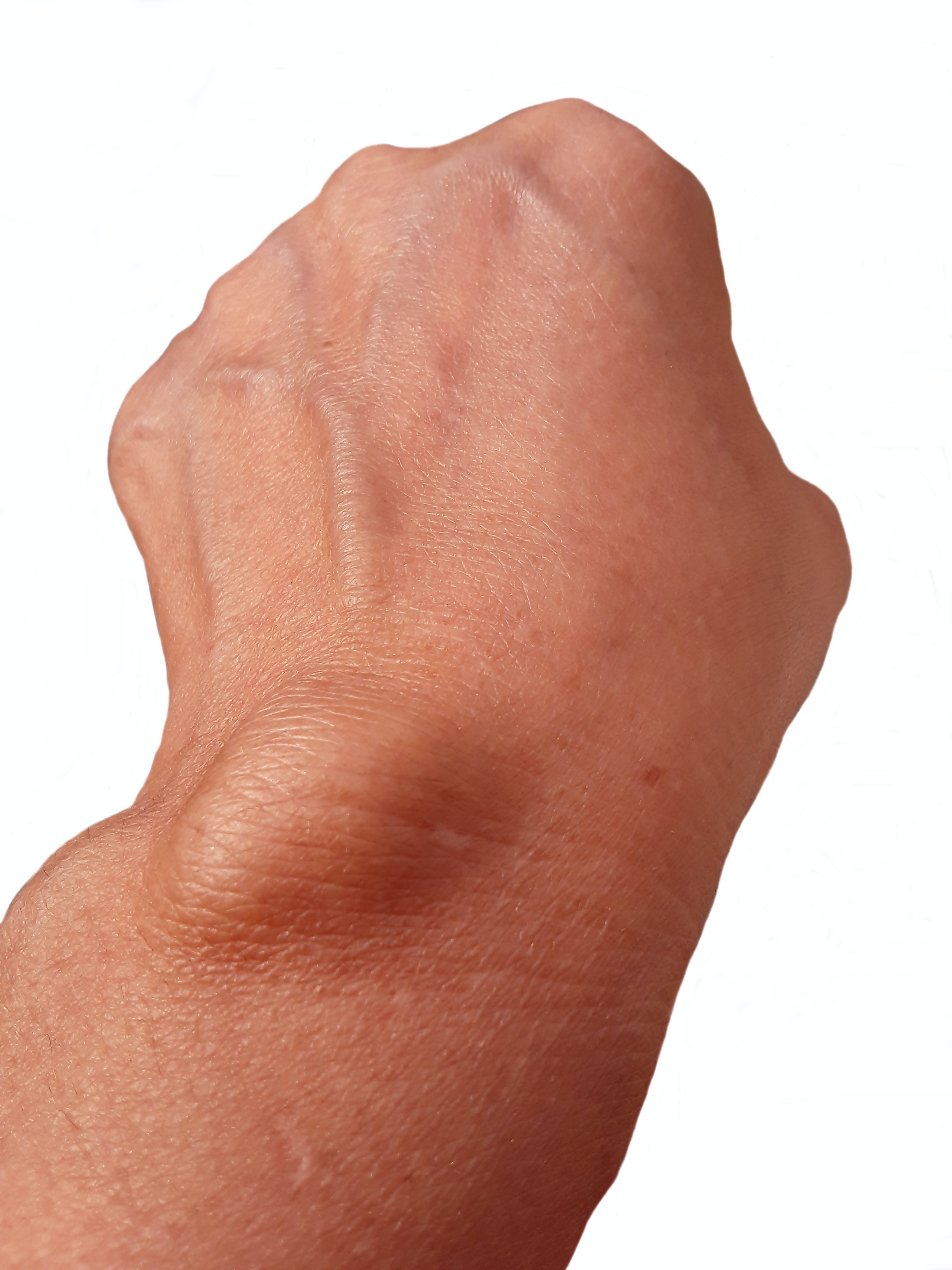 An image depicting a person suffering from painless forearm lump symptoms