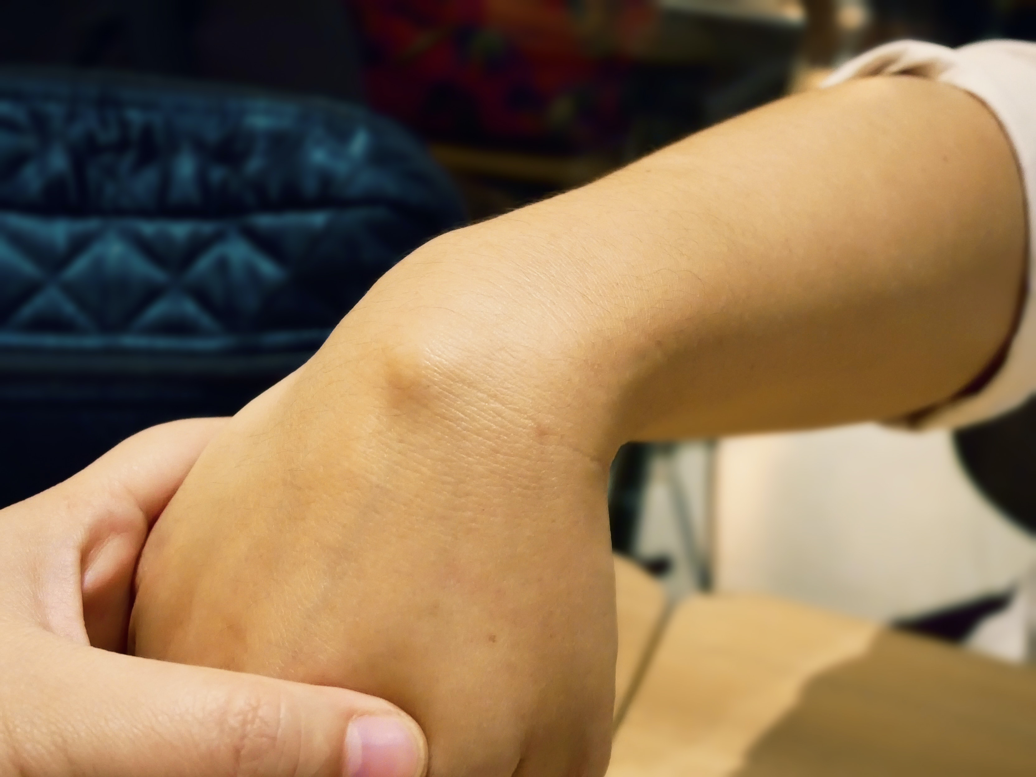 An image depicting a person suffering from painless hand lump symptoms