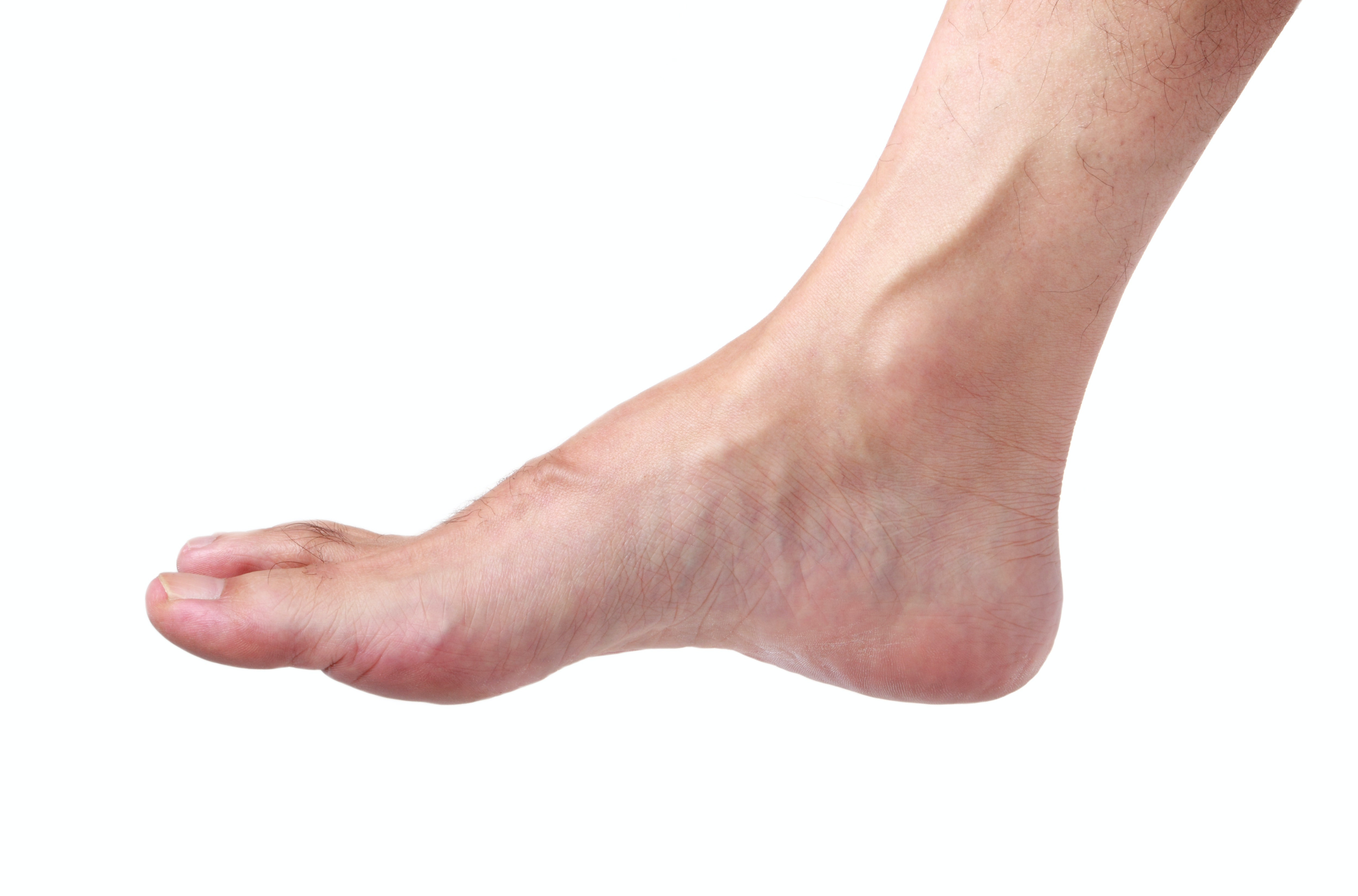 An image depicting a person suffering from pale feet symptoms