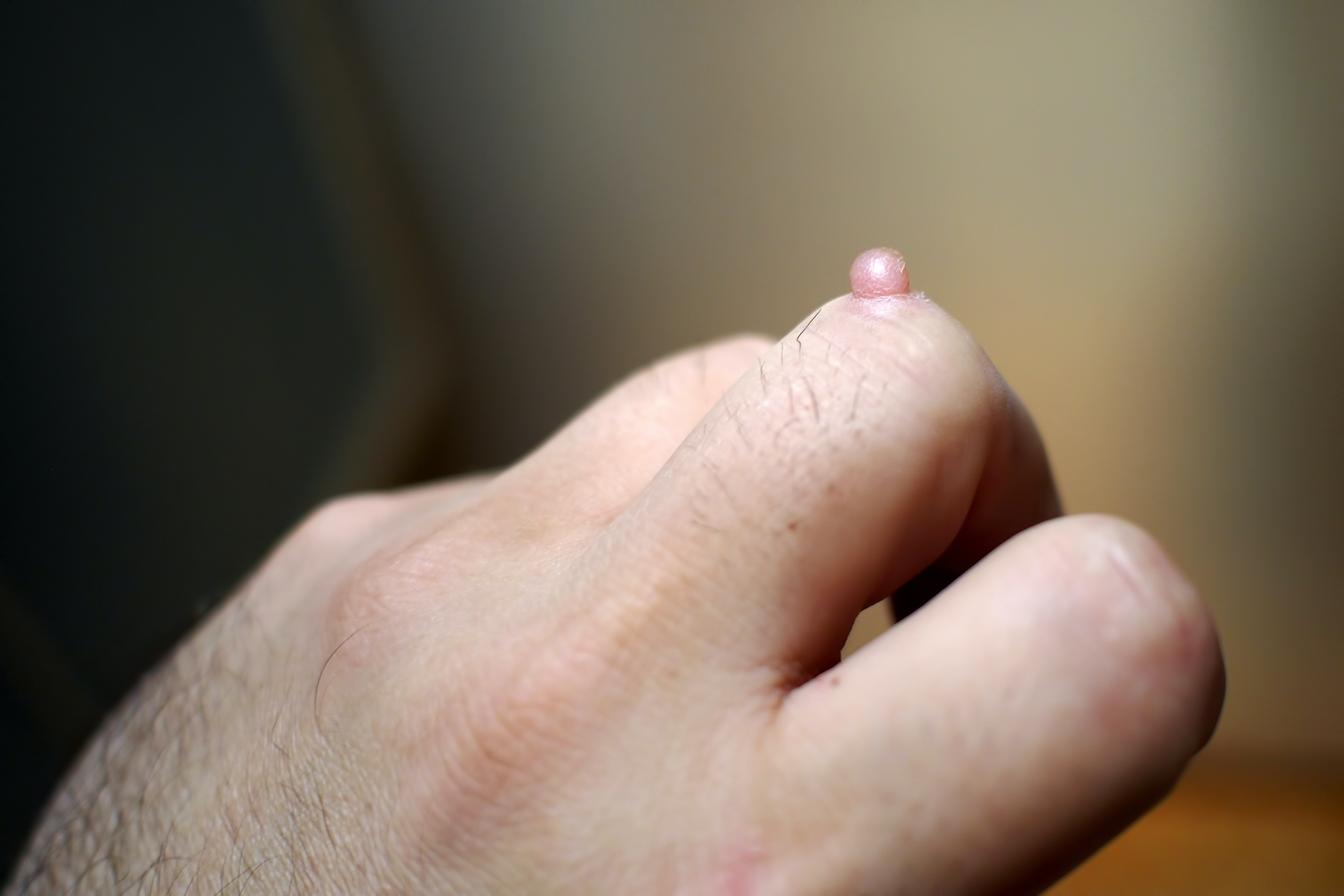 An image depicting a person suffering from pink or red mass on hand symptoms