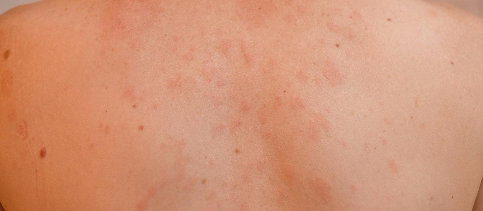 skin-rash-on-penis-charlotte-cheung-nude