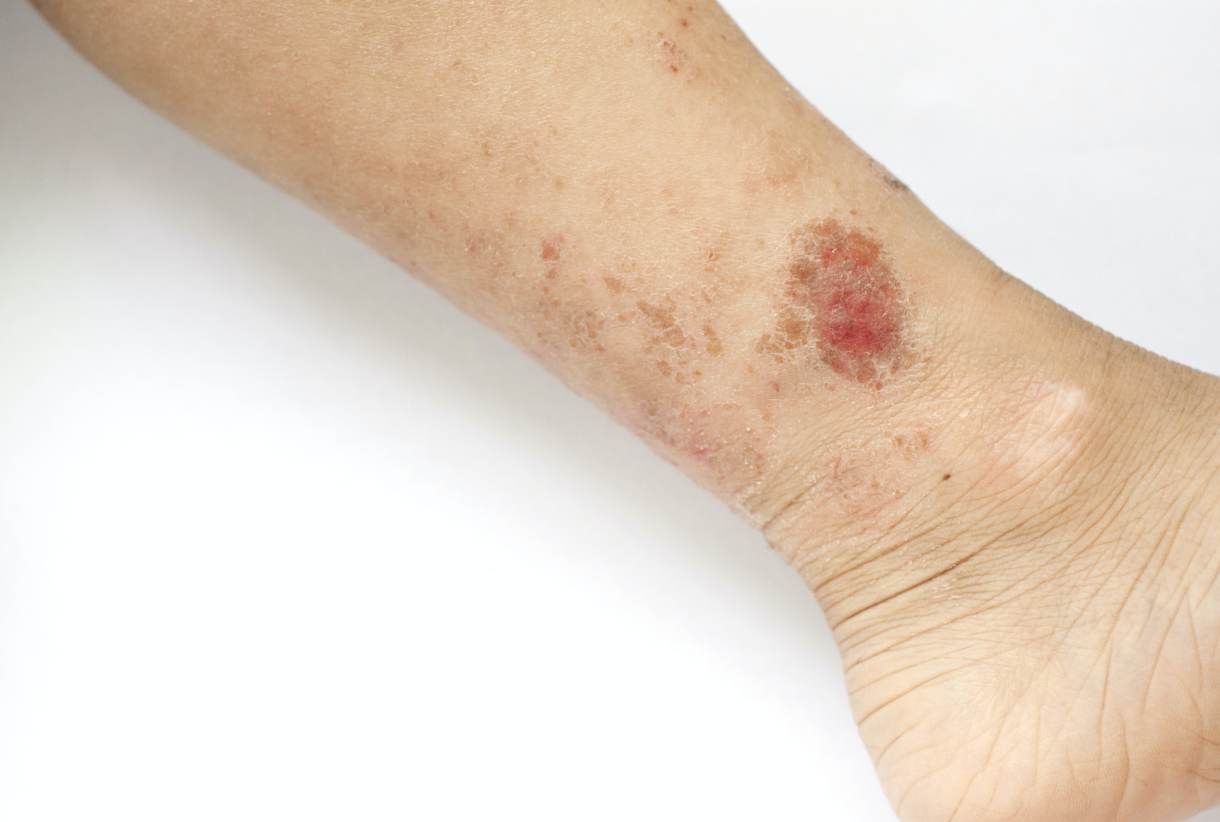 An image depicting a person suffering from rash on one lower leg symptoms