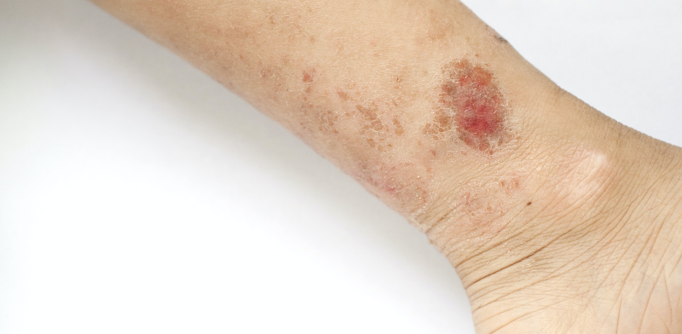 Dry Skin Patches On Back Of Legs - atopic dermatitis symptoms