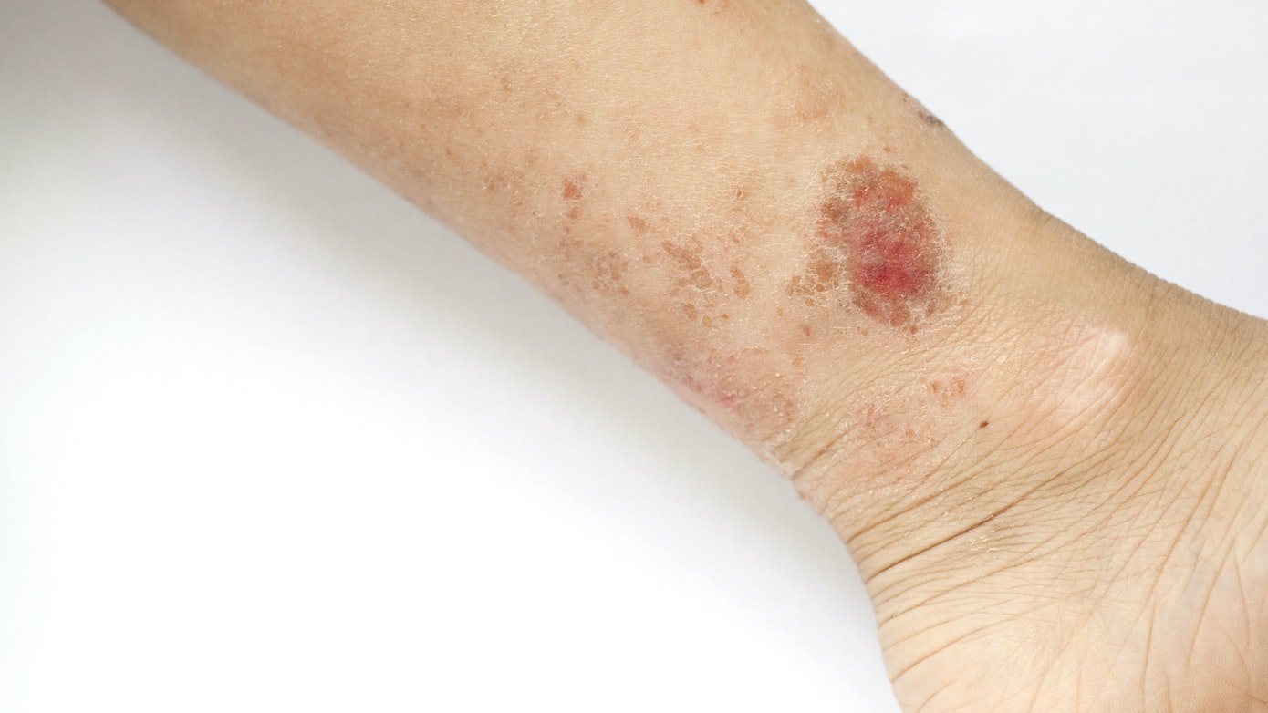 Lower Leg Rash | What You Need to Know About a Rash on One