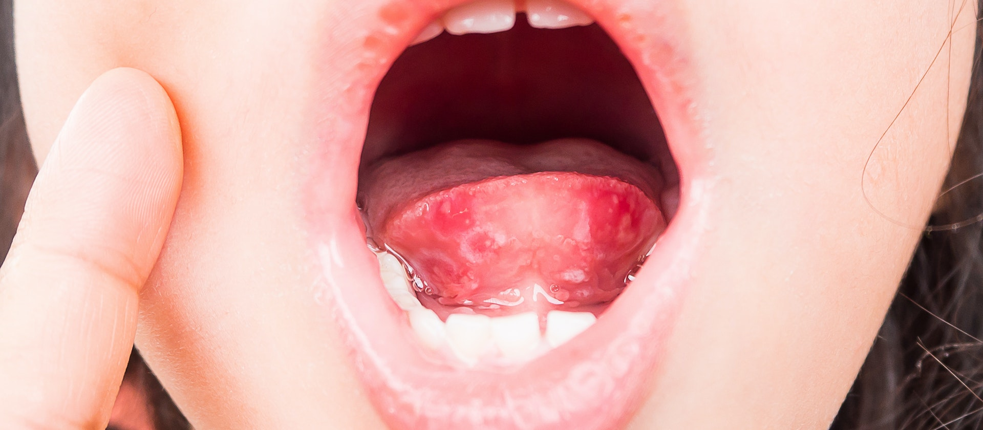 Red Spots In The Mouth Symptoms Causes Treatment Options Buoy
