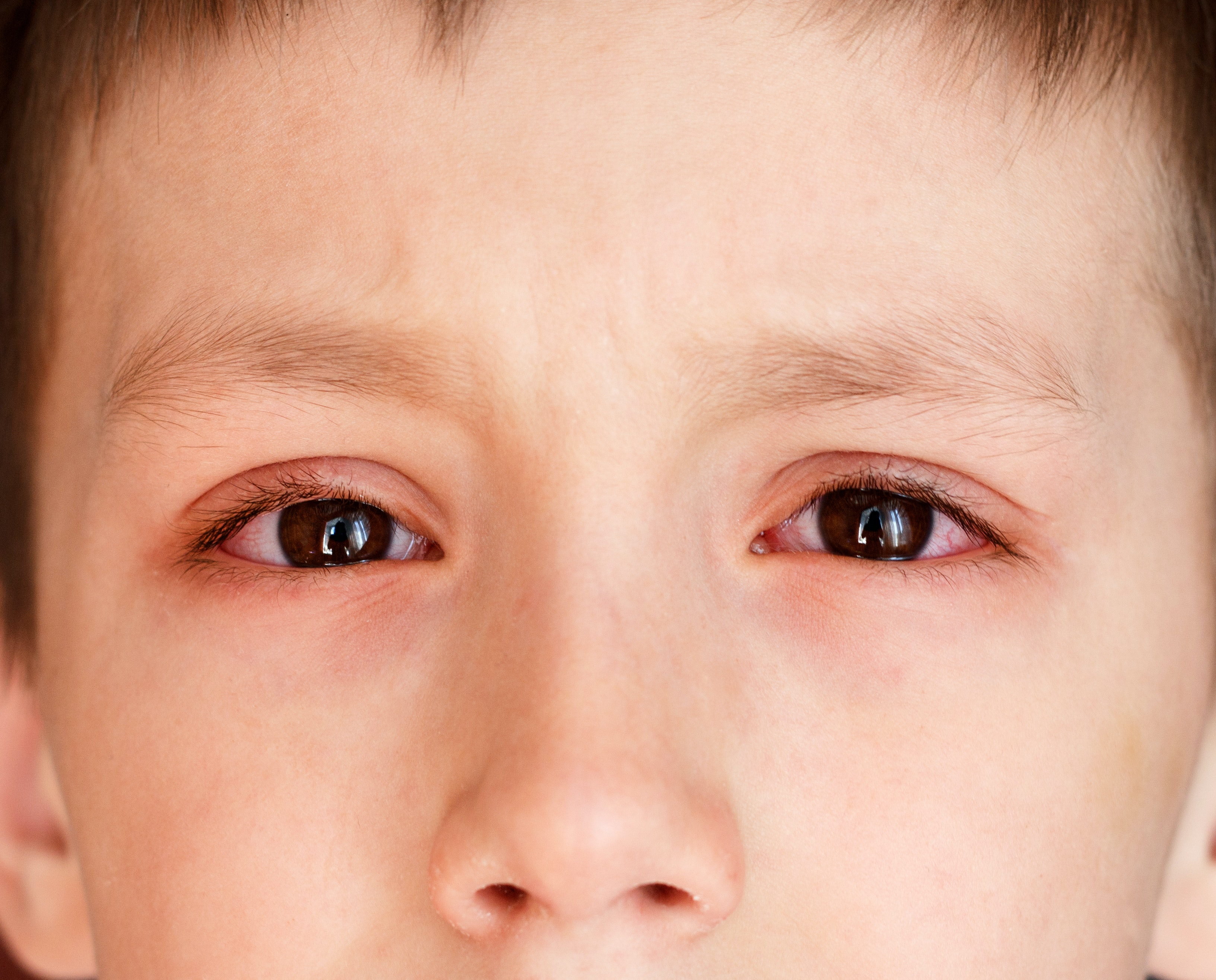 An image depicting a person suffering from redness around the eye symptoms