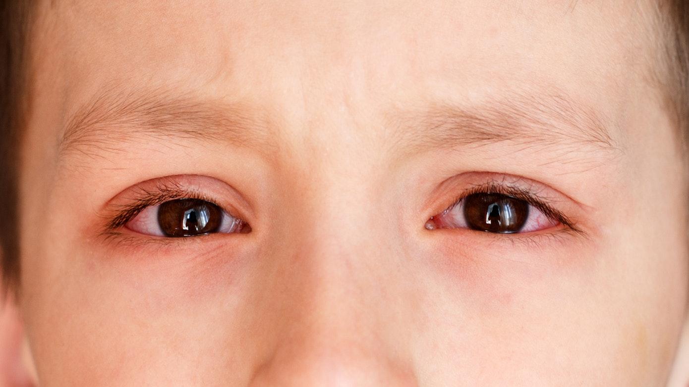 6 Redness Around Eye Causes | Buoy
