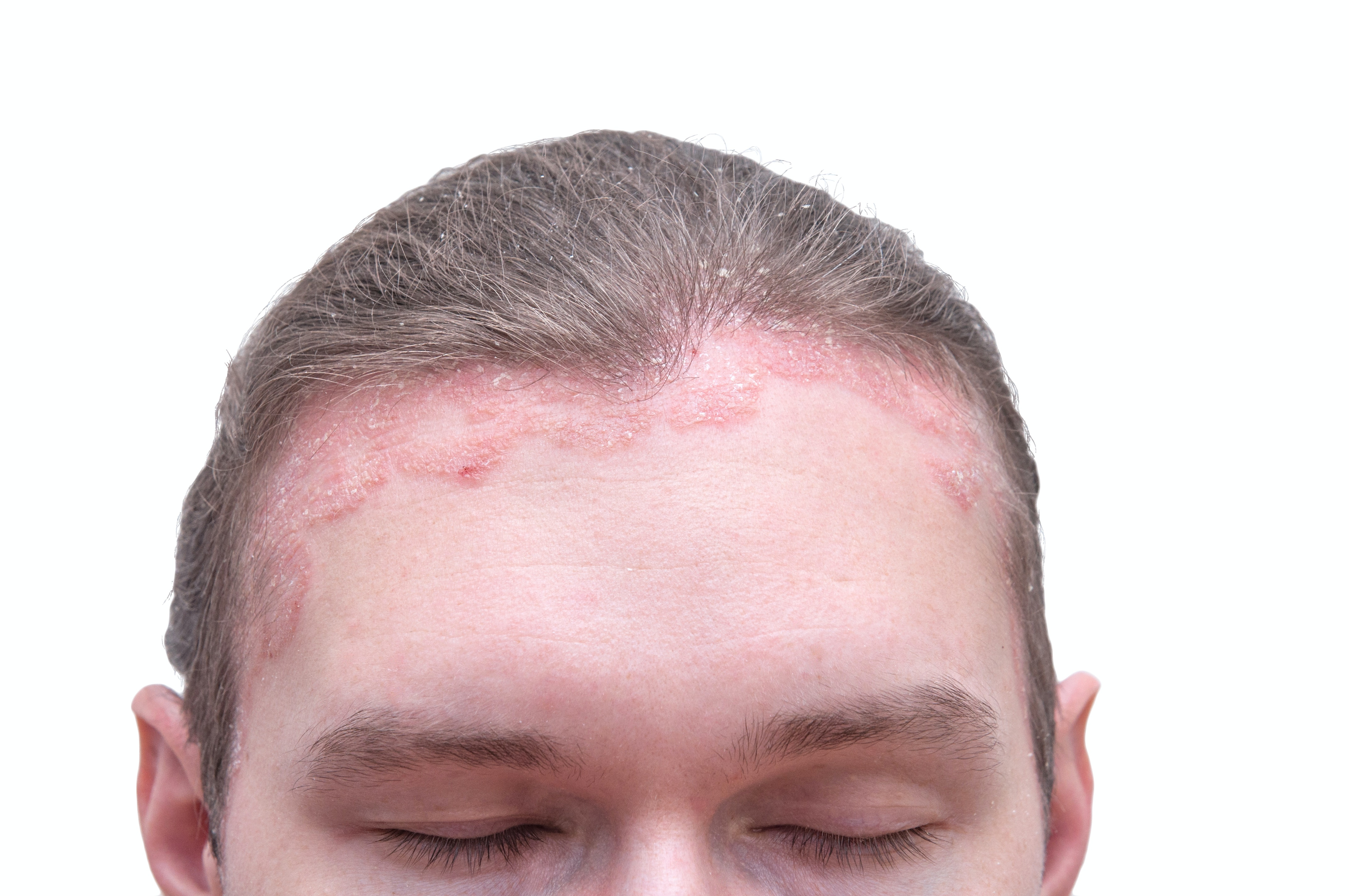 An image depicting a person suffering from scalp redness symptoms