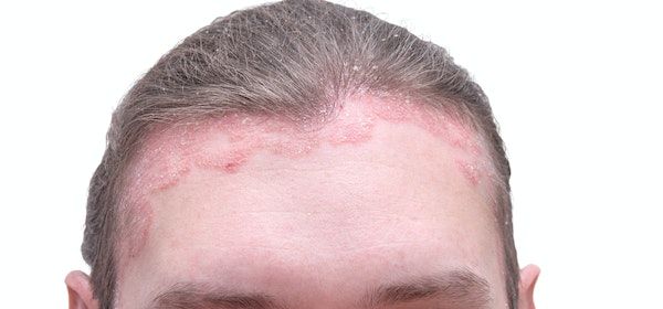 Scalp Redness Symptoms, Causes & Common Questions | Buoy