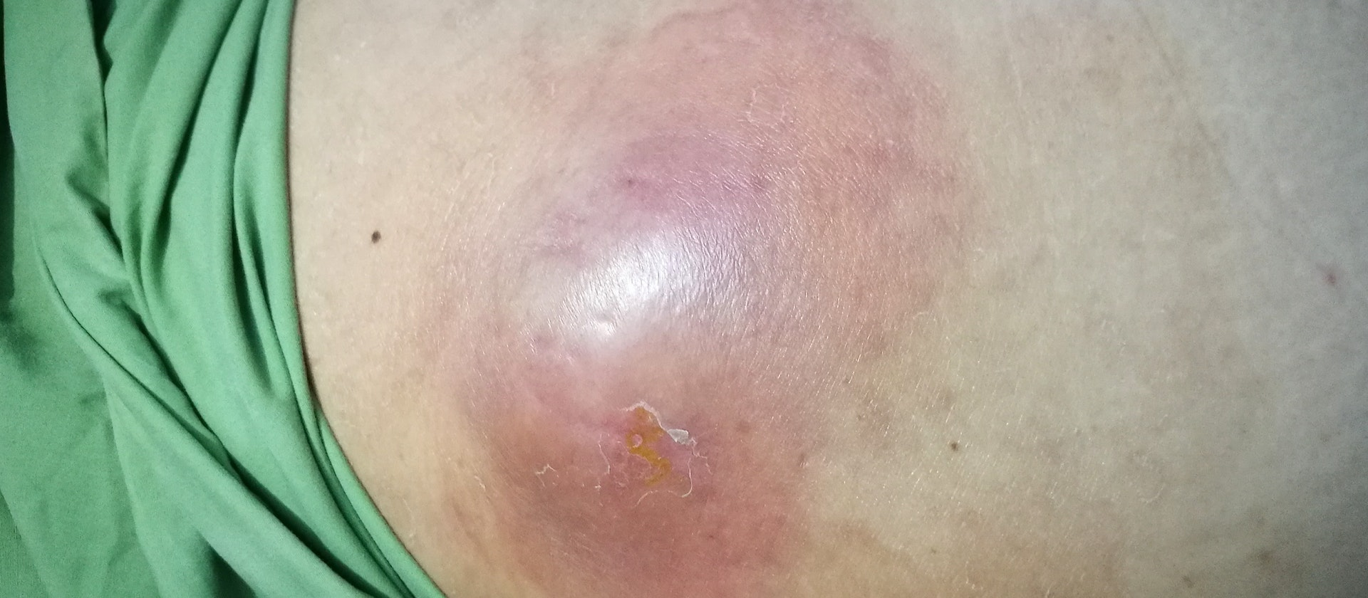 Sore butt crack