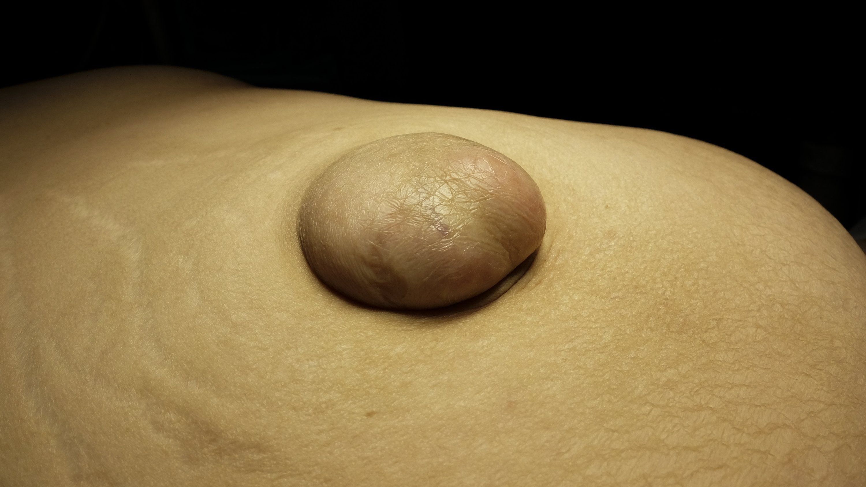 An image depicting a person suffering from skin-colored abdominal bump symptoms