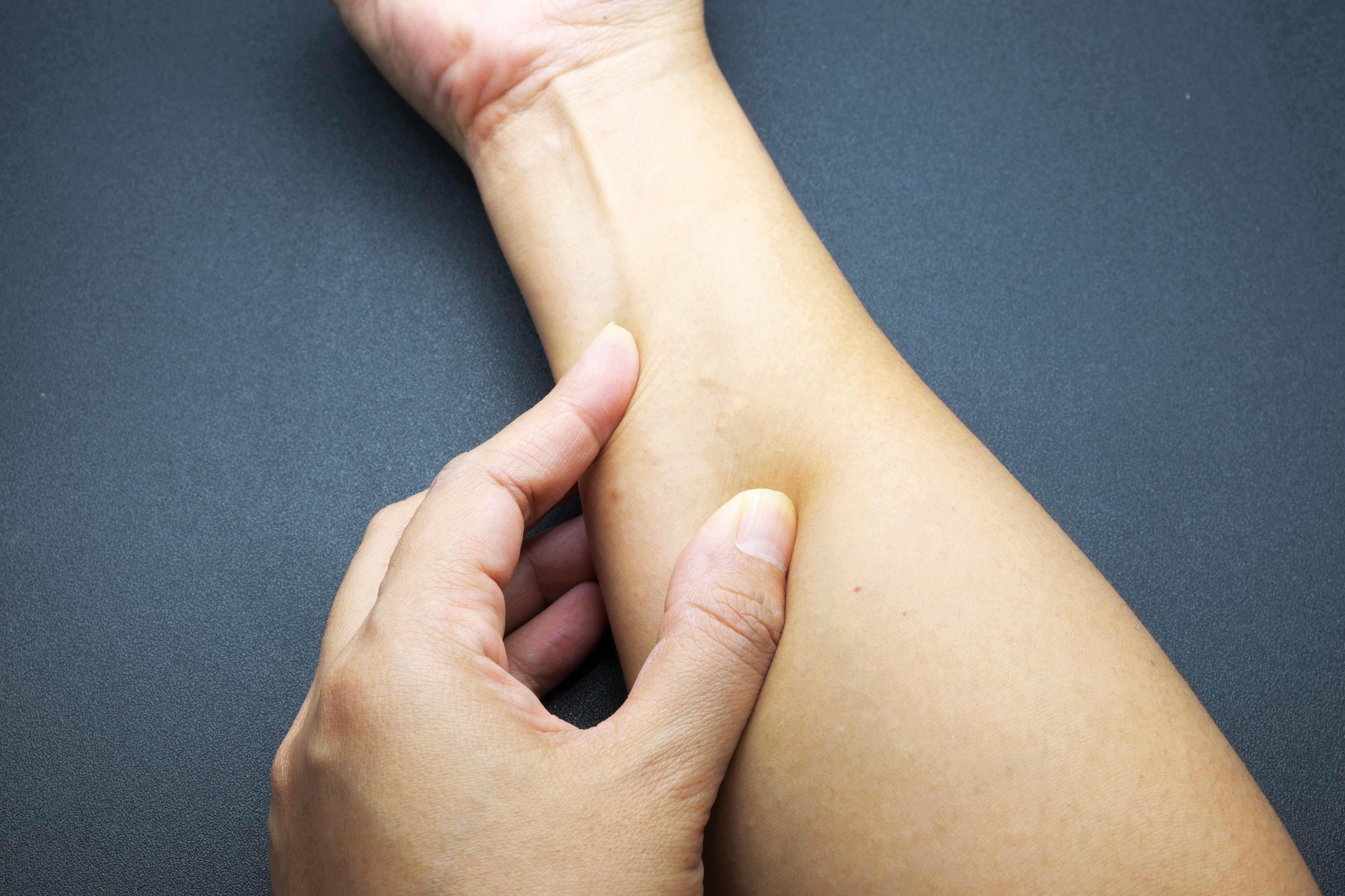 An image depicting a person suffering from skin-colored forearm bump symptoms