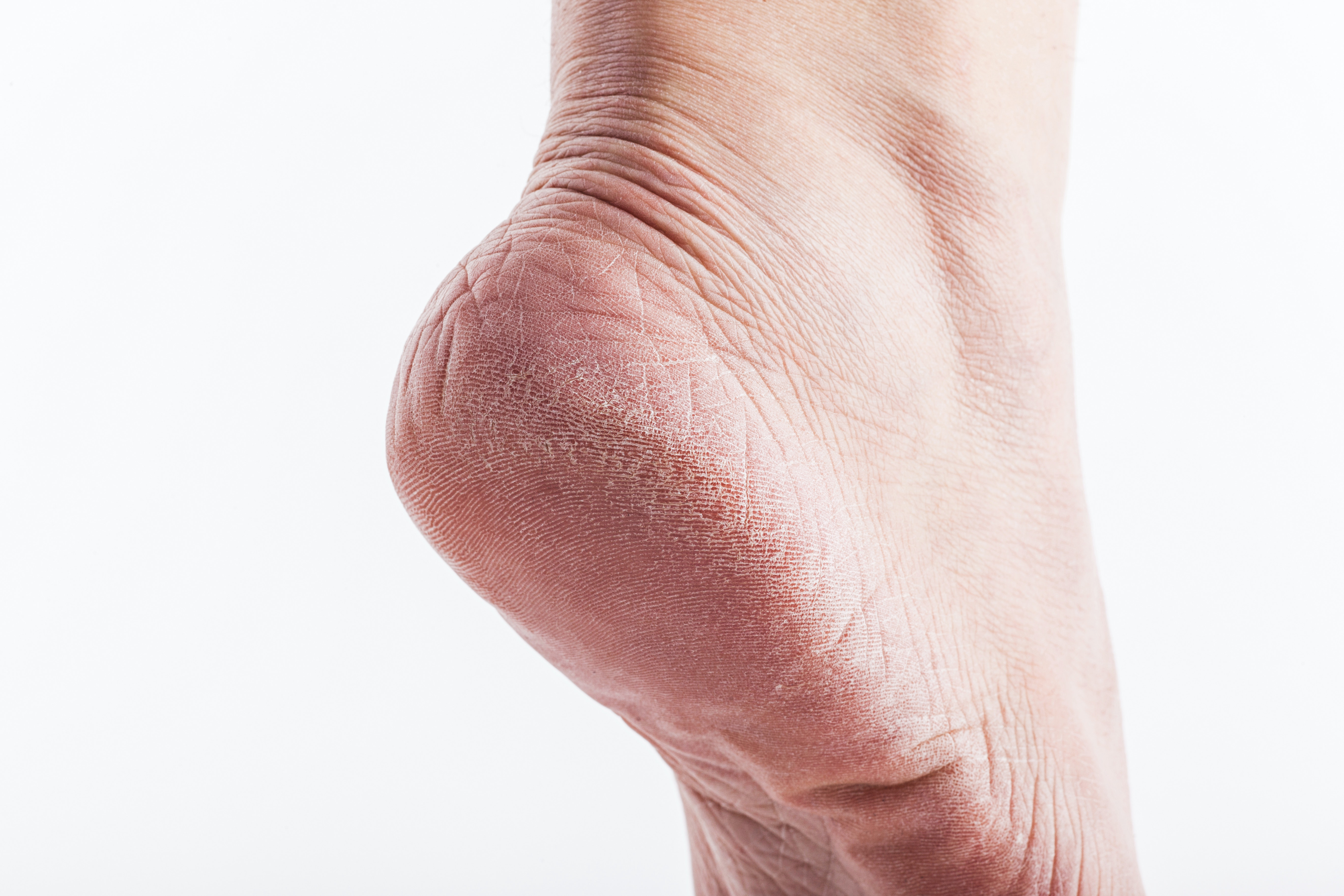 An image depicting a person suffering from skin thickening symptoms