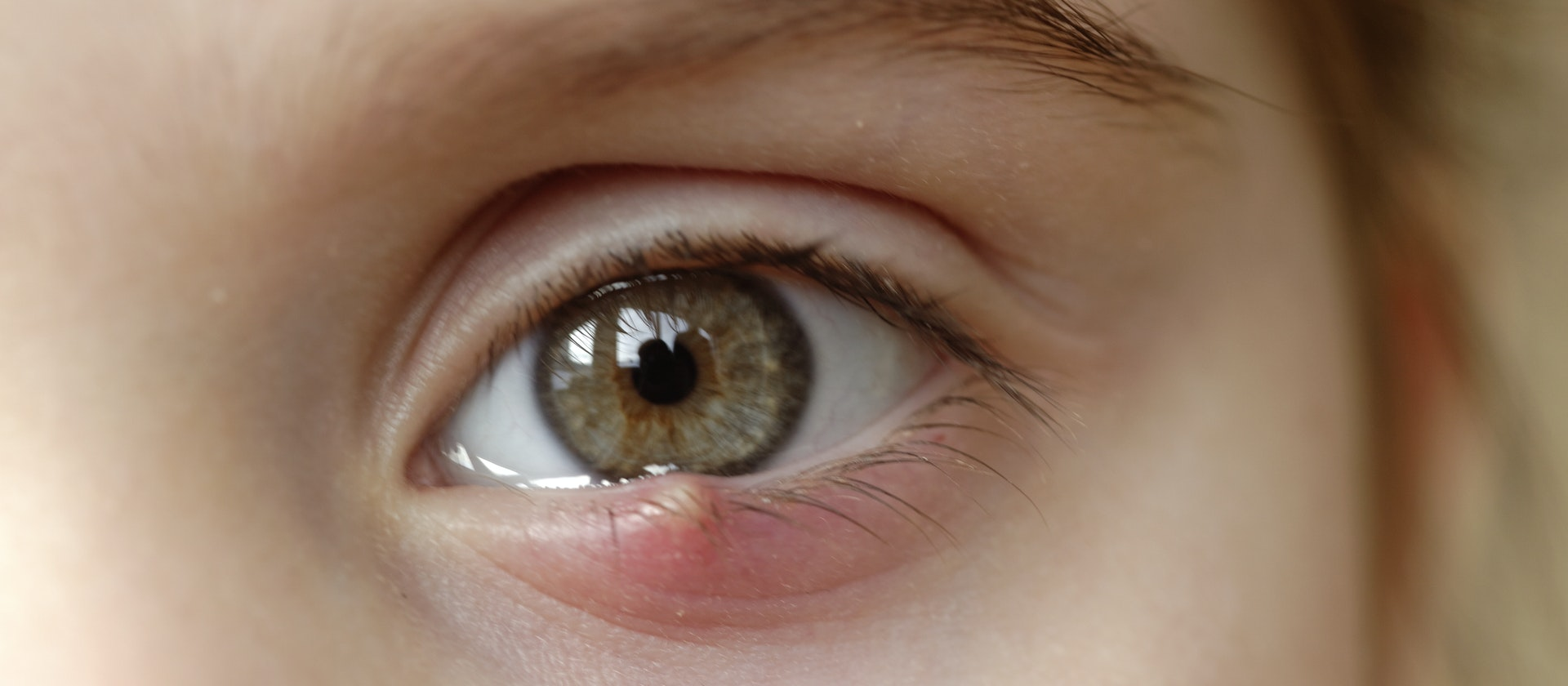 Redness Around The Eye Symptoms Causes Common Questions Buoy