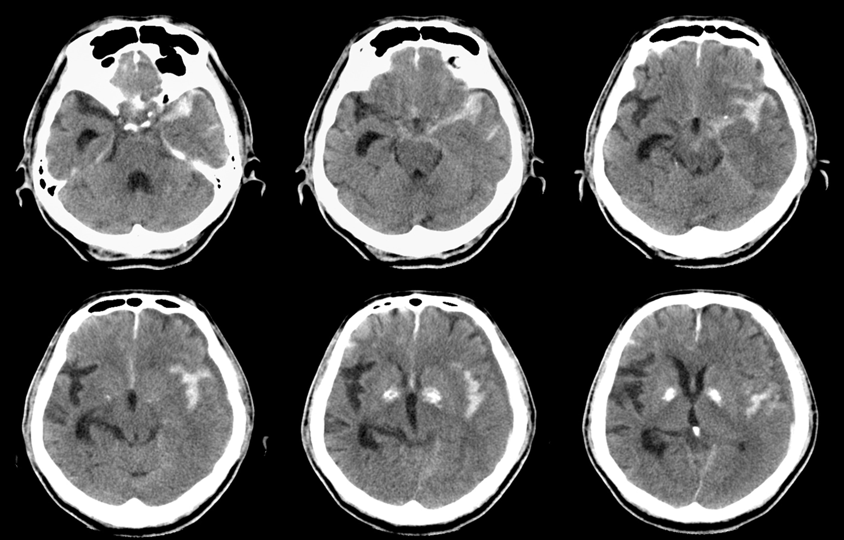 An image depicting a person suffering from Subarachnoid Hemorrhage symptoms