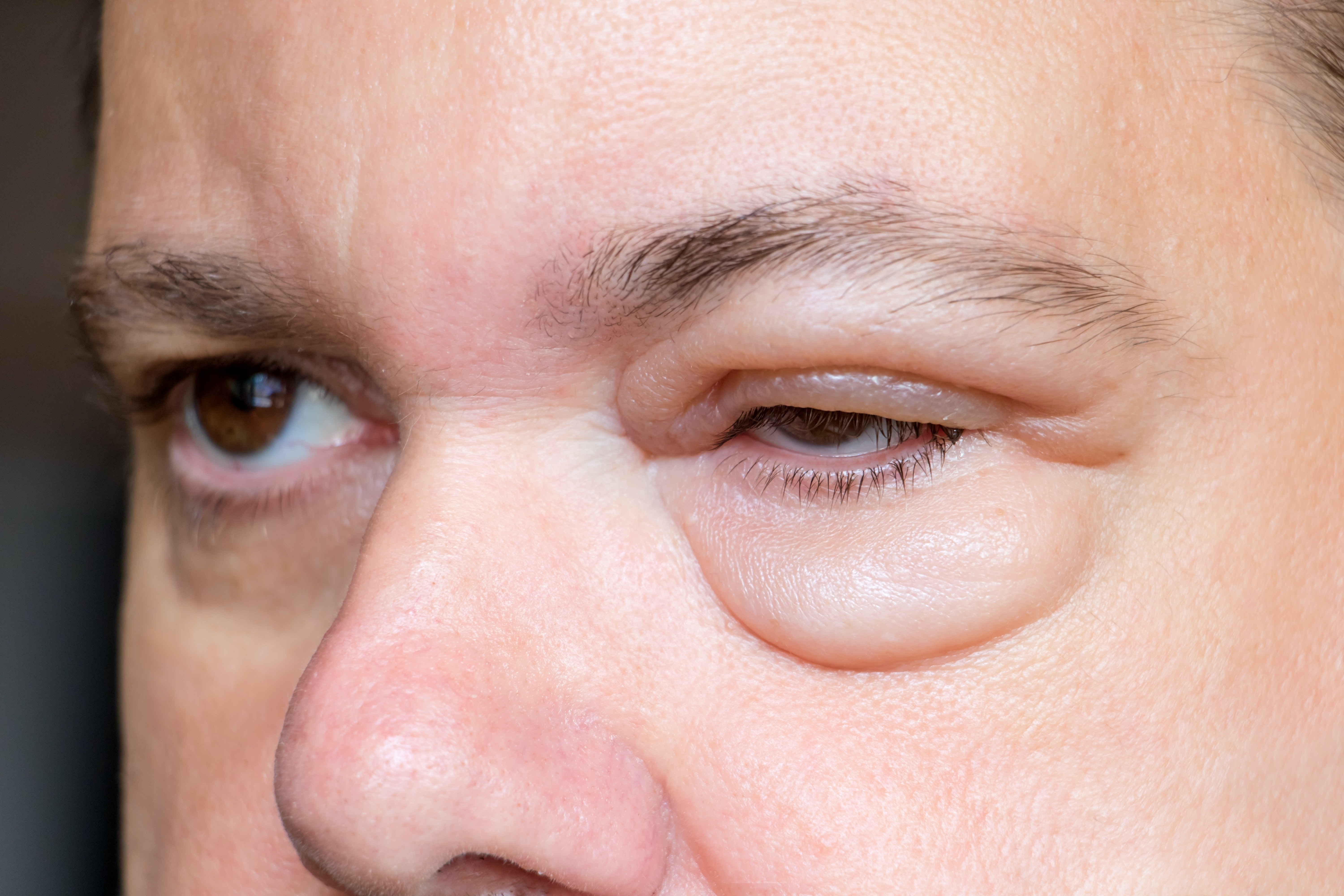 An image depicting a person suffering from swelling around the eye symptoms