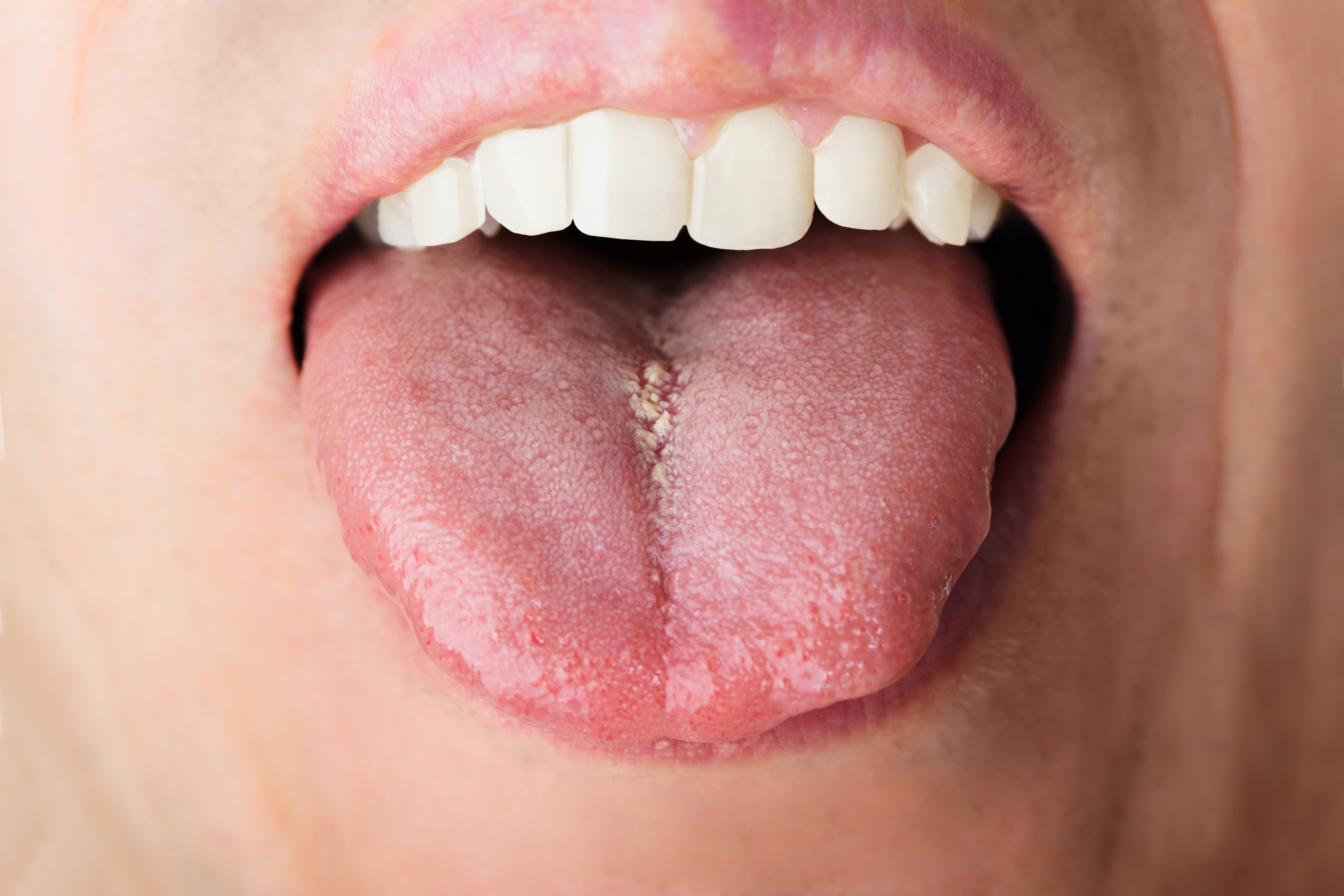 Why Is My Tongue Swollen 4 Swollen Tongue Causes Faqs Buoy