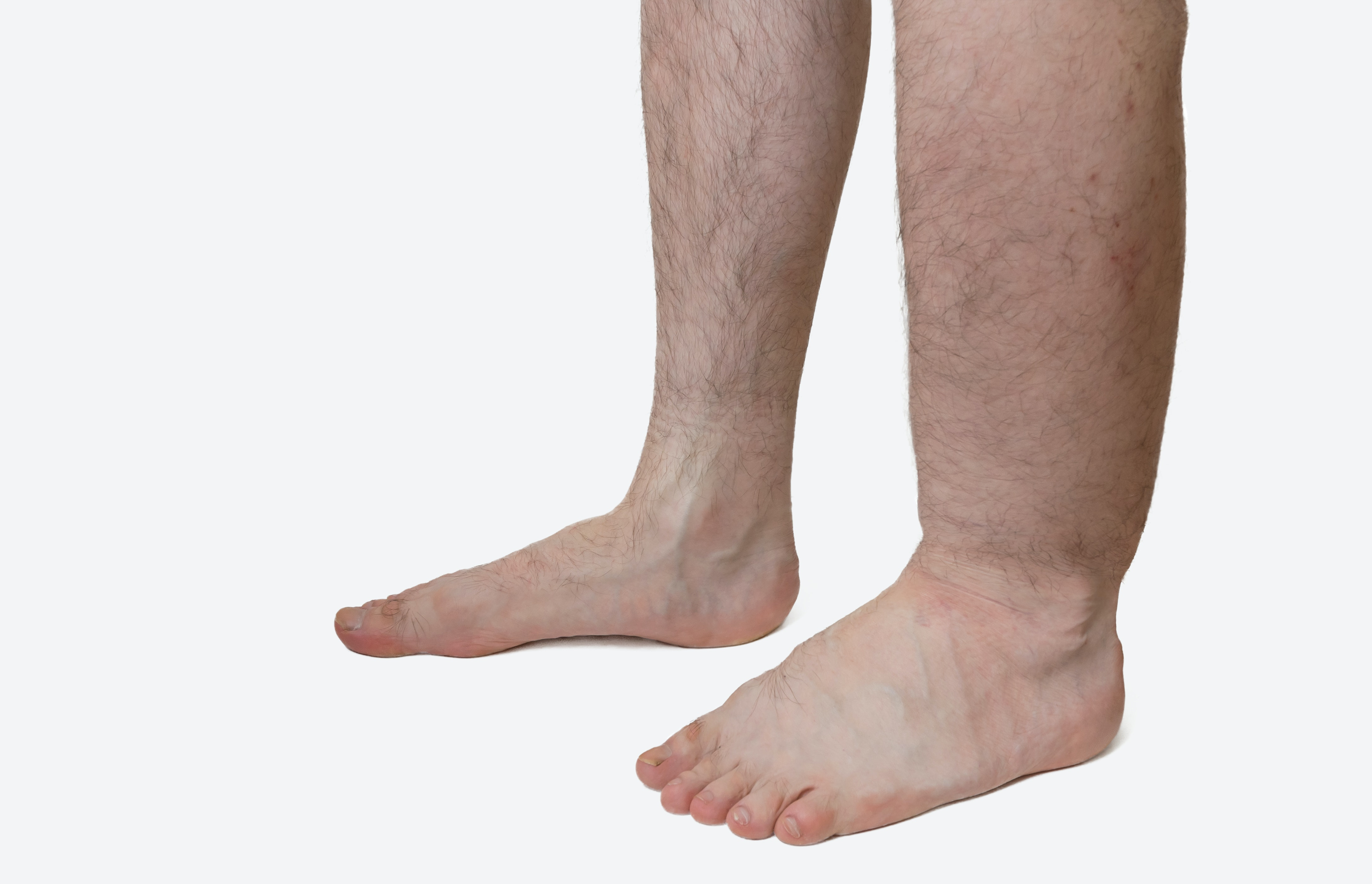An image depicting a person suffering from swelling in one lower leg symptoms