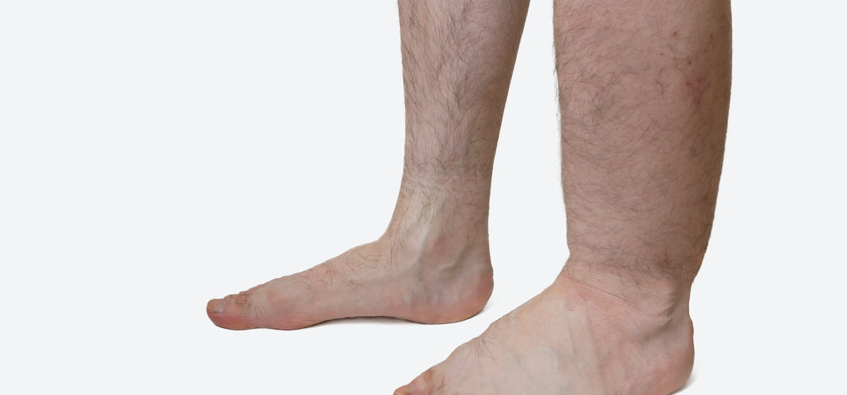 Lower Leg Swelling | What To Do About Swelling in One Lower Leg