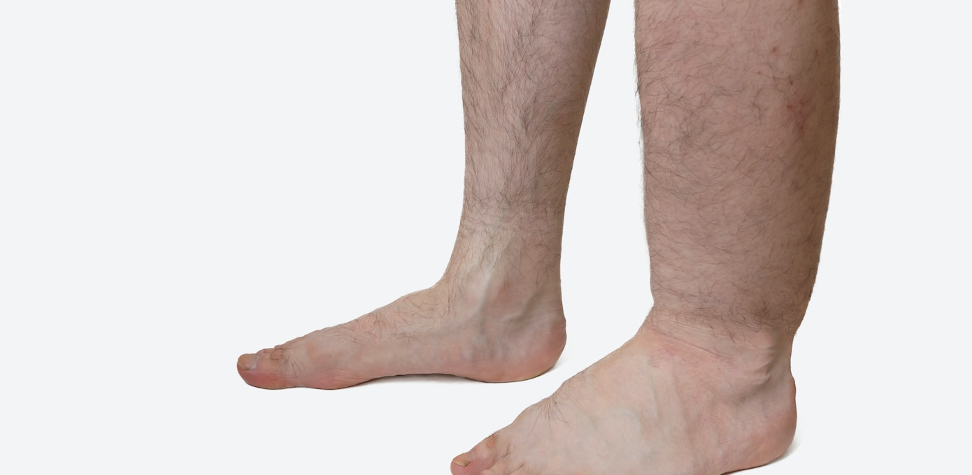 63dddbf5c0 Lower Leg Swelling   What To Do About Swelling in One Lower Leg
