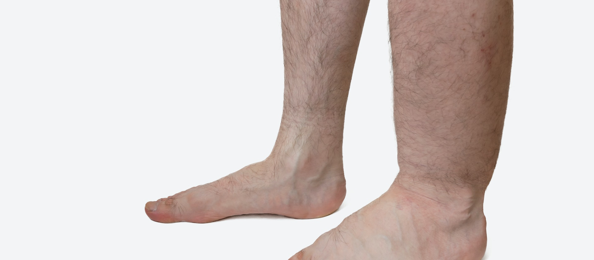 Swelling In One Lower Leg Symptoms Causes Common Questions Buoy