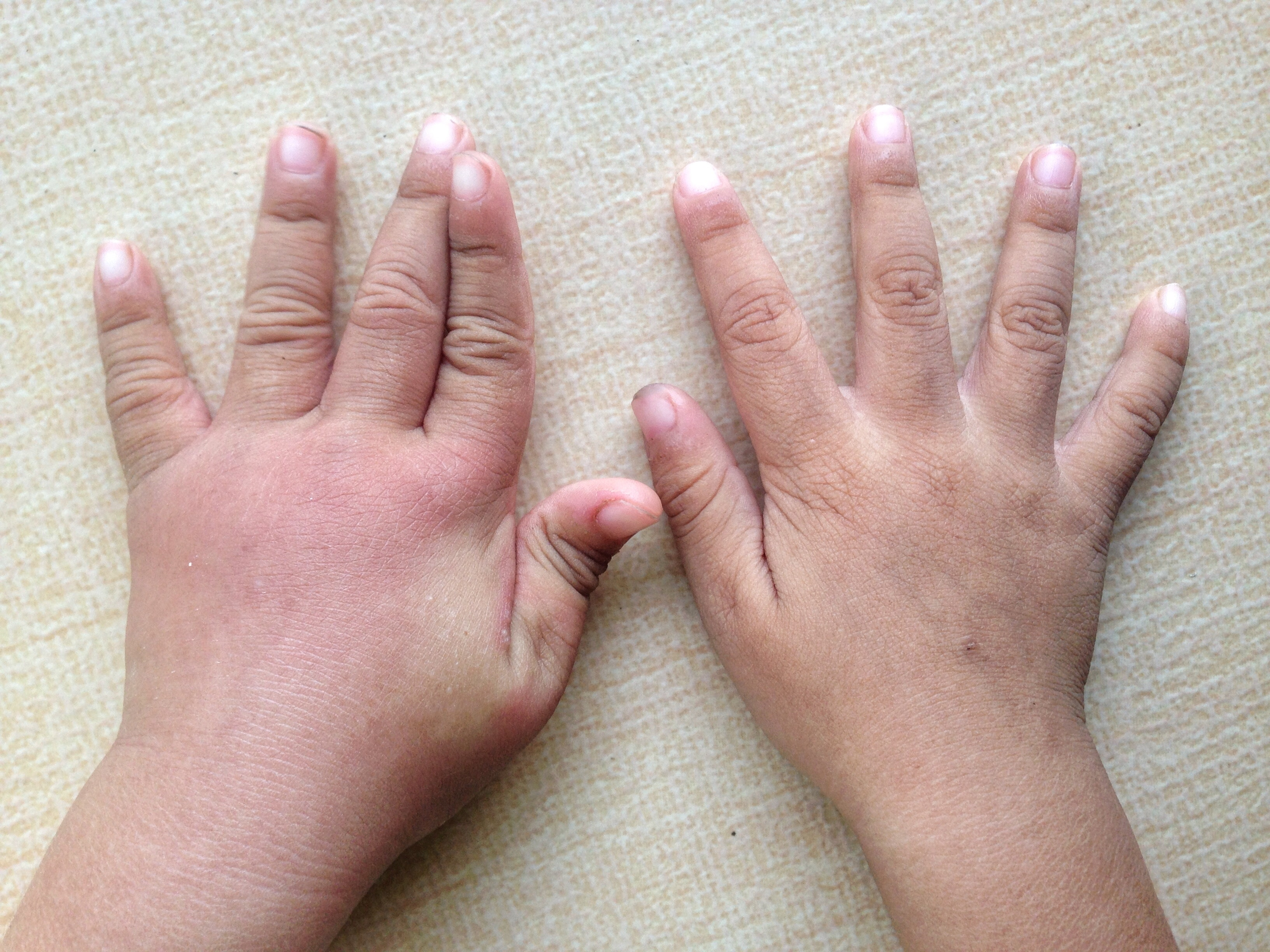 An image depicting a person suffering from swelling of both hands symptoms