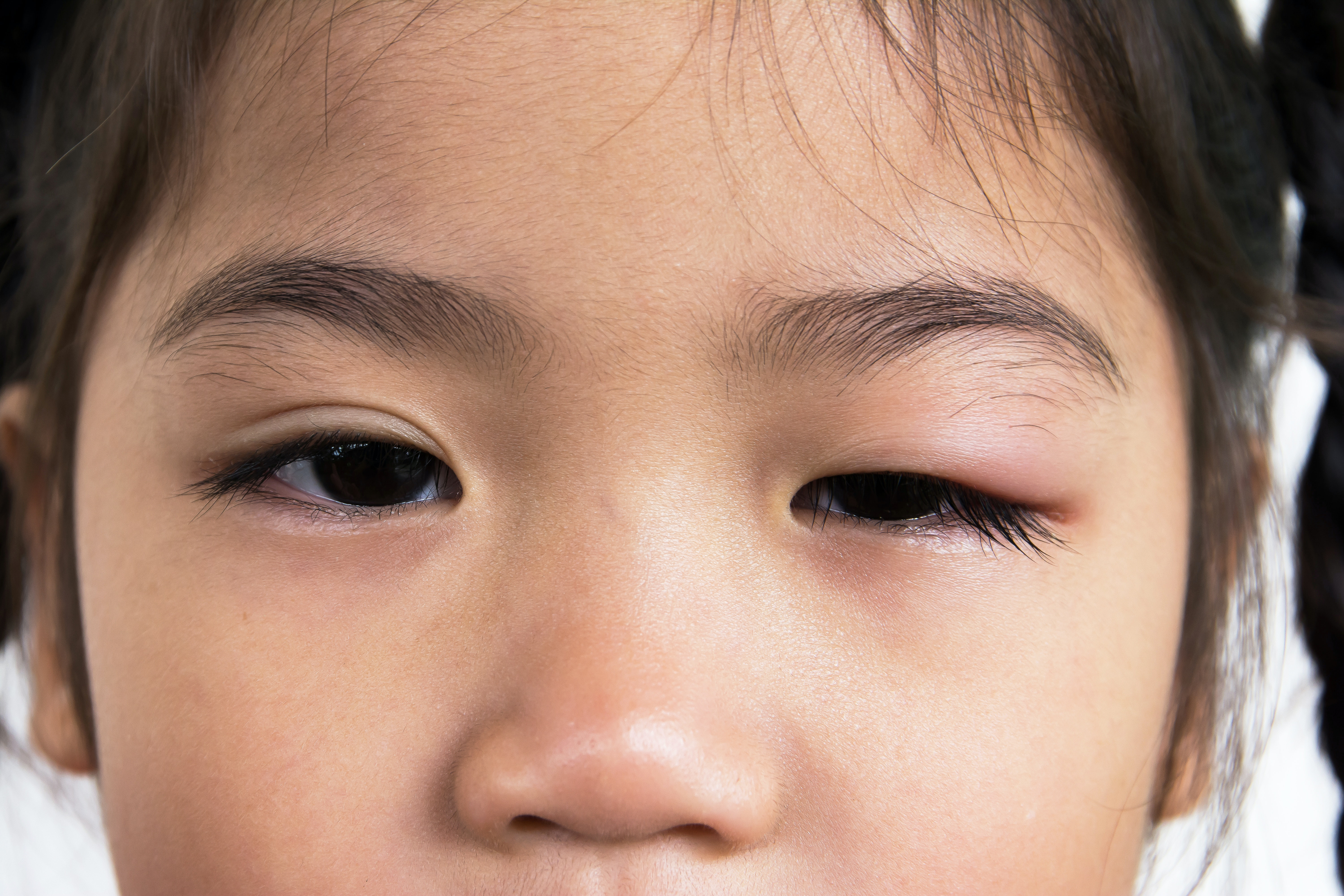 An image depicting a person suffering from swelling of one eyelid symptoms