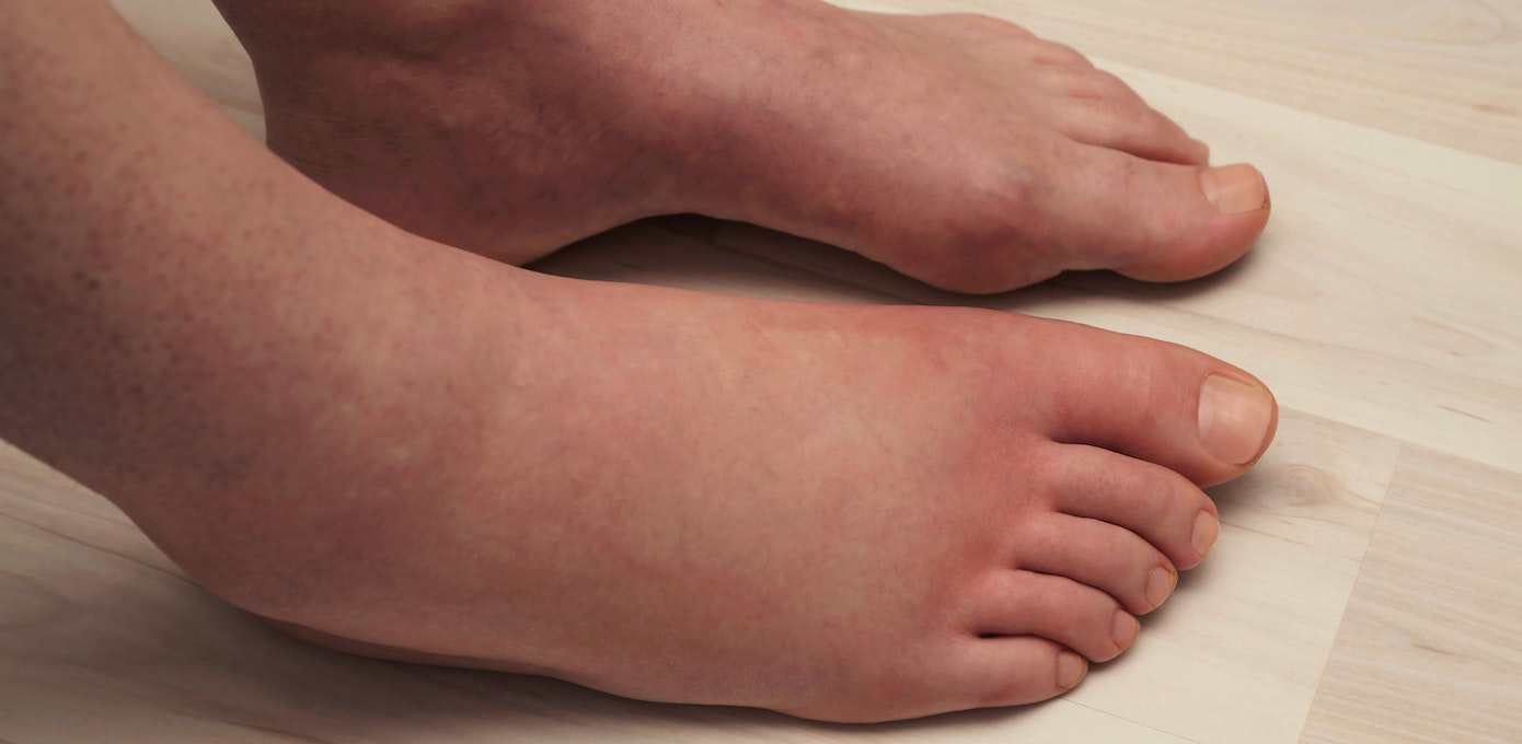 itchy rash on top of foot and ankle
